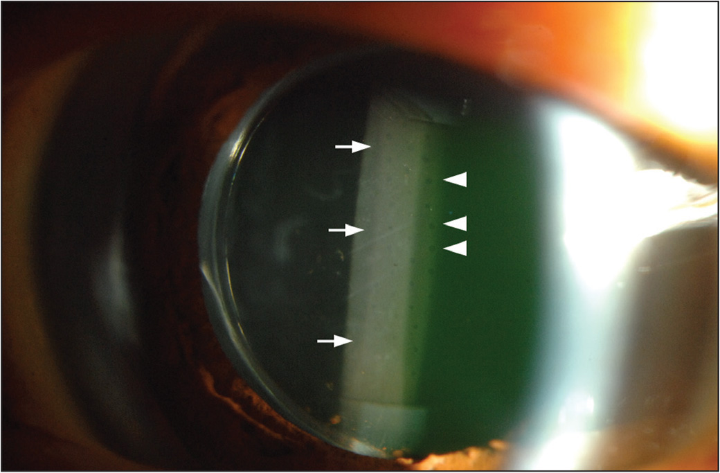 Slit-lamp photograph of the right eye with an enVista MX60 intraocular lens (Bausch & Lomb, Rochester, NY). Diffuse whitish glistening formations (arrows) are visible on the optic of the intraocular lens with small, round clear zones (arrowheads) in a regular manner.