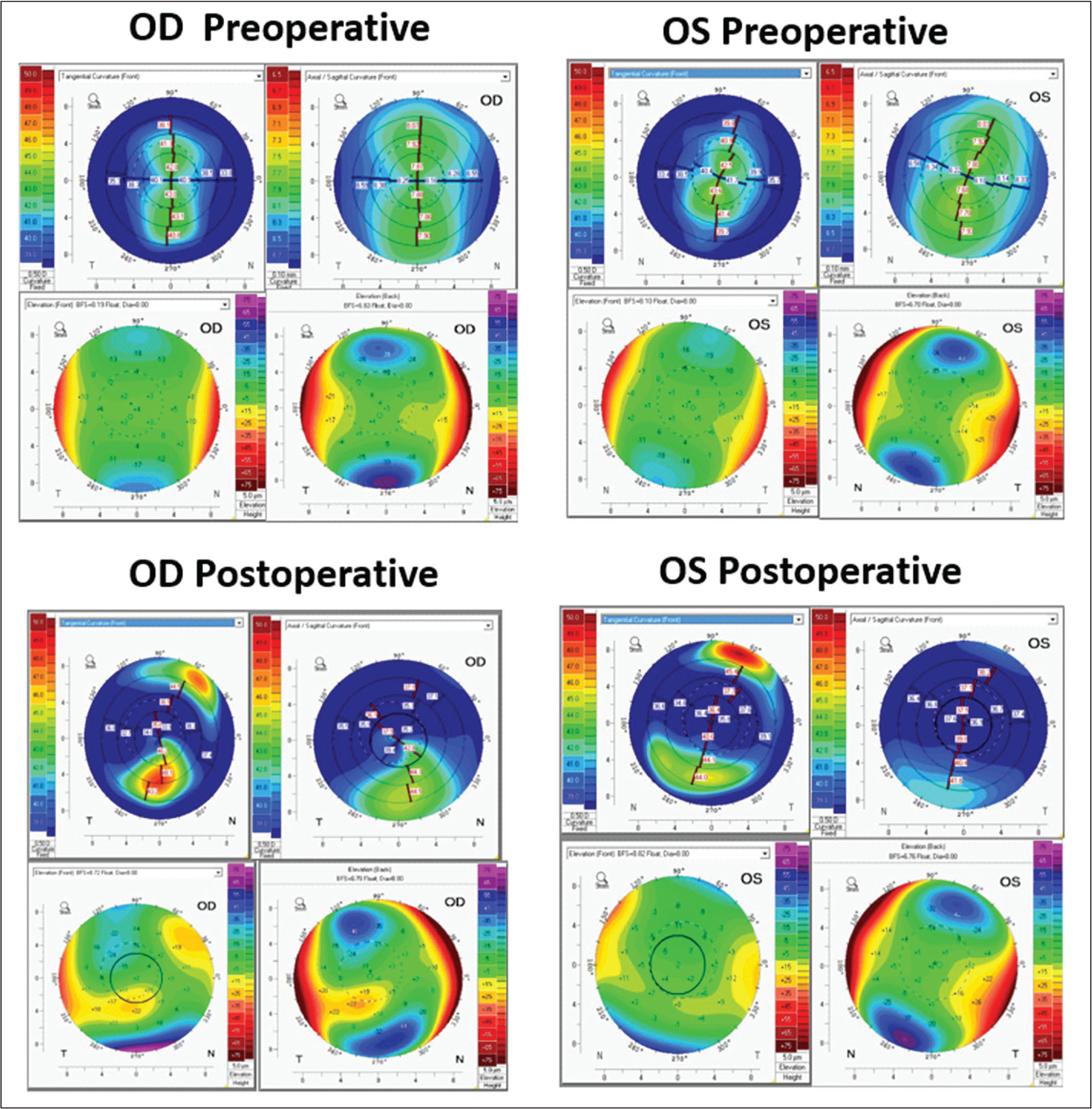 Preoperative and postoperative tomography maps from the Pentacam HR (Oculus Optikgeräte GmbH, Wetzlar, Germany) showing anterior tangential curvature, axial curvature, back and front elevation (clockwise order from top left). Preoperative differences were minimal between the (A) right (OD) and (B) left (OS) eye. Postoperatively, differential inferior steepening is seen in the (C) ectatic right eye in comparison to the (D) stable left eye.