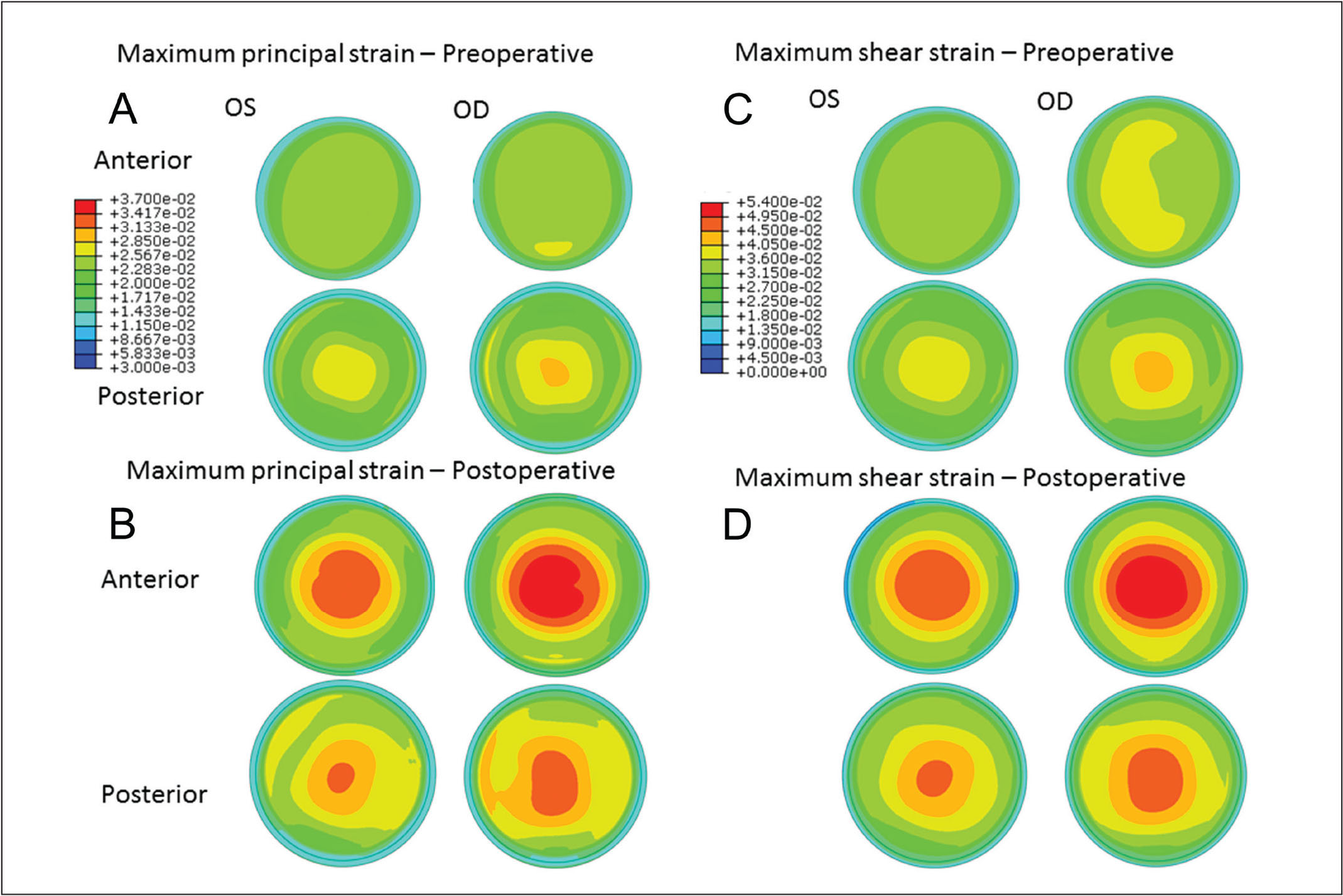 Maps of maximum principal strain from the anterior and posterior stromal surfaces in the (A) preoperative and (B) simulated postoperative state. Higher strain values, larger areas of increased strain, and more eccentric distributions of strain are apparent in all states and in all regions in the eye that ultimately developed ectasia (right eye [OD]). An inferior region of locally concentrated strain was predicted in the postoperative state of the OD where the ectatic region manifested clinically (A). Highest focal maximum principal strain values (dimensionless units) from the anterior residual stromal bed were 0.038 in the left eye (OS) and 0.042 in the OD in the preoperative state, and 0.049 and 0.053, respectively, in the postoperative state. Maximum shear strain was also highly asymmetric in (C) preoperative and (D) postoperative models between eyes throughout the stroma and favored greater shear strain in the eye that eventually developed ectasia.
