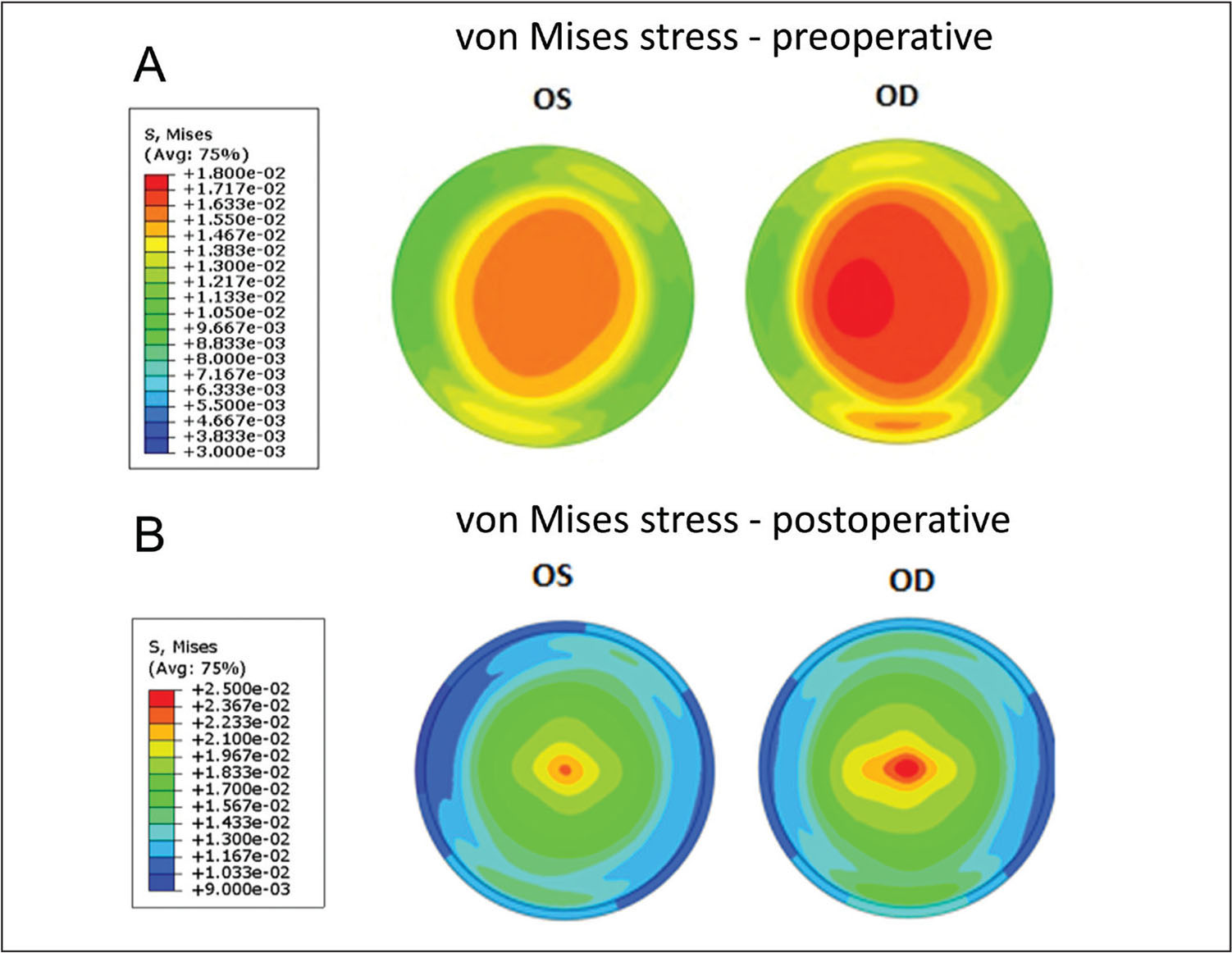Maps of von Mises stress (in megapascals, MPa) from the anterior stroma in the (A) preoperative state and the (B) anterior residual stroma in the simulated post-LASIK state. Higher stress magnitudes as well as larger and more eccentric areas of peak stress are present before and after simulated LASIK in the eye that ultimately developed ectasia (right eye [OD]). Color scales are different for the preoperative and postoperative states to facilitate visualization of the interocular differences. OS = left eye