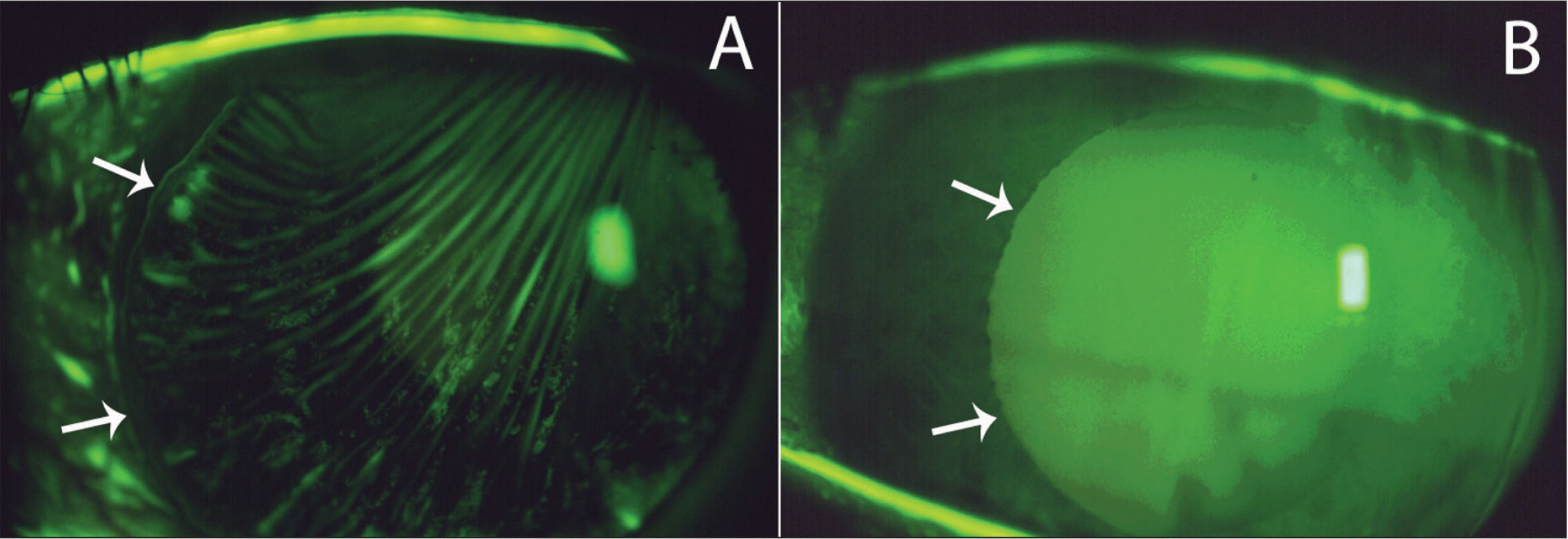 (A) Large flap striae visible with green lissamine (arrows indicate flap edge) after LASIK with a mechanical microkeratome. (B) One day after flap hydration, stroking with an iris spatula and repositioning.