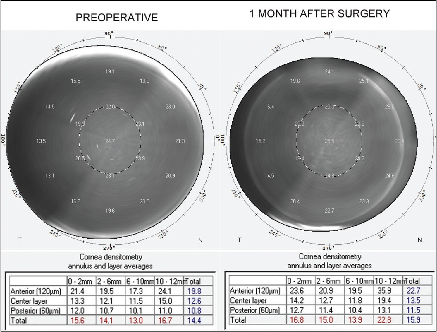 An example of corneal densitometry (left) preoperatively and (right) 3 months after femtosecond laser-assisted LASIK showing an increase in backward light scattering in the central corneal area and along the flap edge.