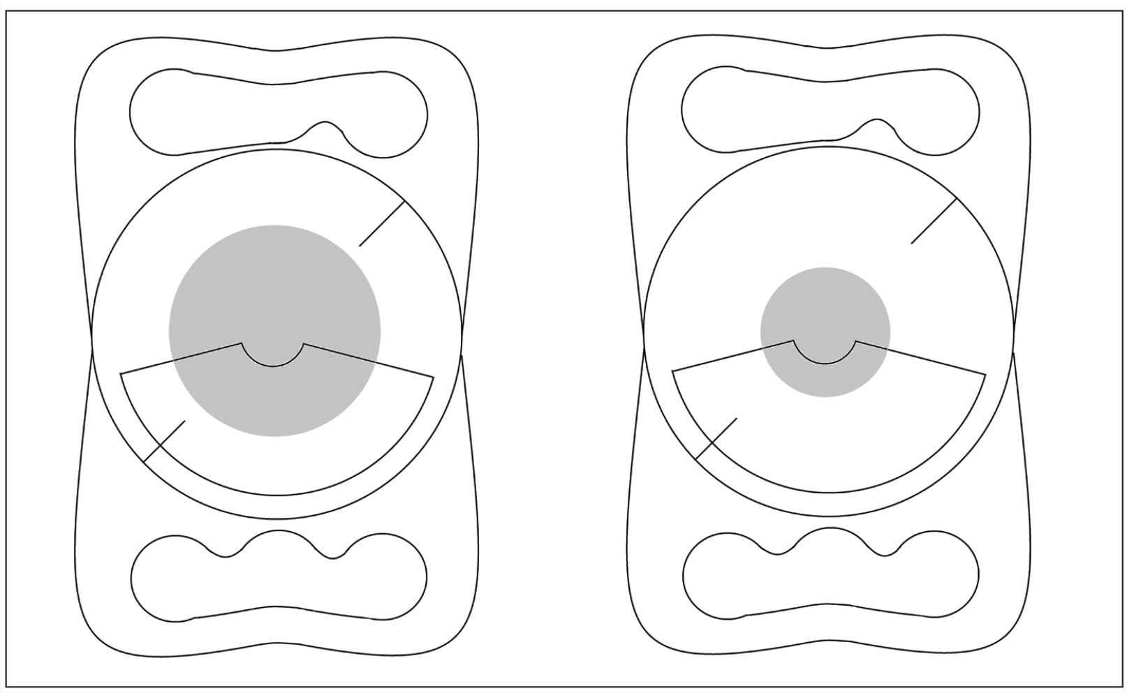 "The relationship between the pupil size and Lentis Mplus toric LU-313 30TY intraocular lens (Oculentis GmbH, Berlin, Germany). The gray disc indicates the pupil area. When the pupil is small, the ""pupil-exposed"" optic zone of this intraocular lens model, especially the near segment, will eventually be small."