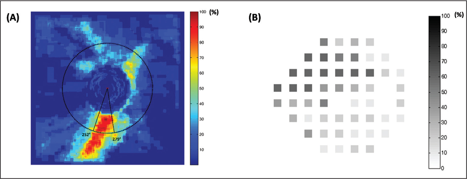 Frequency distribution plots constructed by overlaying the (A) retinal nerve fiber layer (RNFL) thickness deviation maps (ie, superpixels encoded in red) of the 23 eyes with glaucoma and (B) the standard automated perimetry pattern deviation plots (ie, test locations with P < .05) of the 10 eyes with perimetric glaucoma. The inferotemporal meridians at 252° to 279° were the most frequent locations where RNFL abnormalities were found, which corresponded with the superonasal visual field being the most commonly affected region.