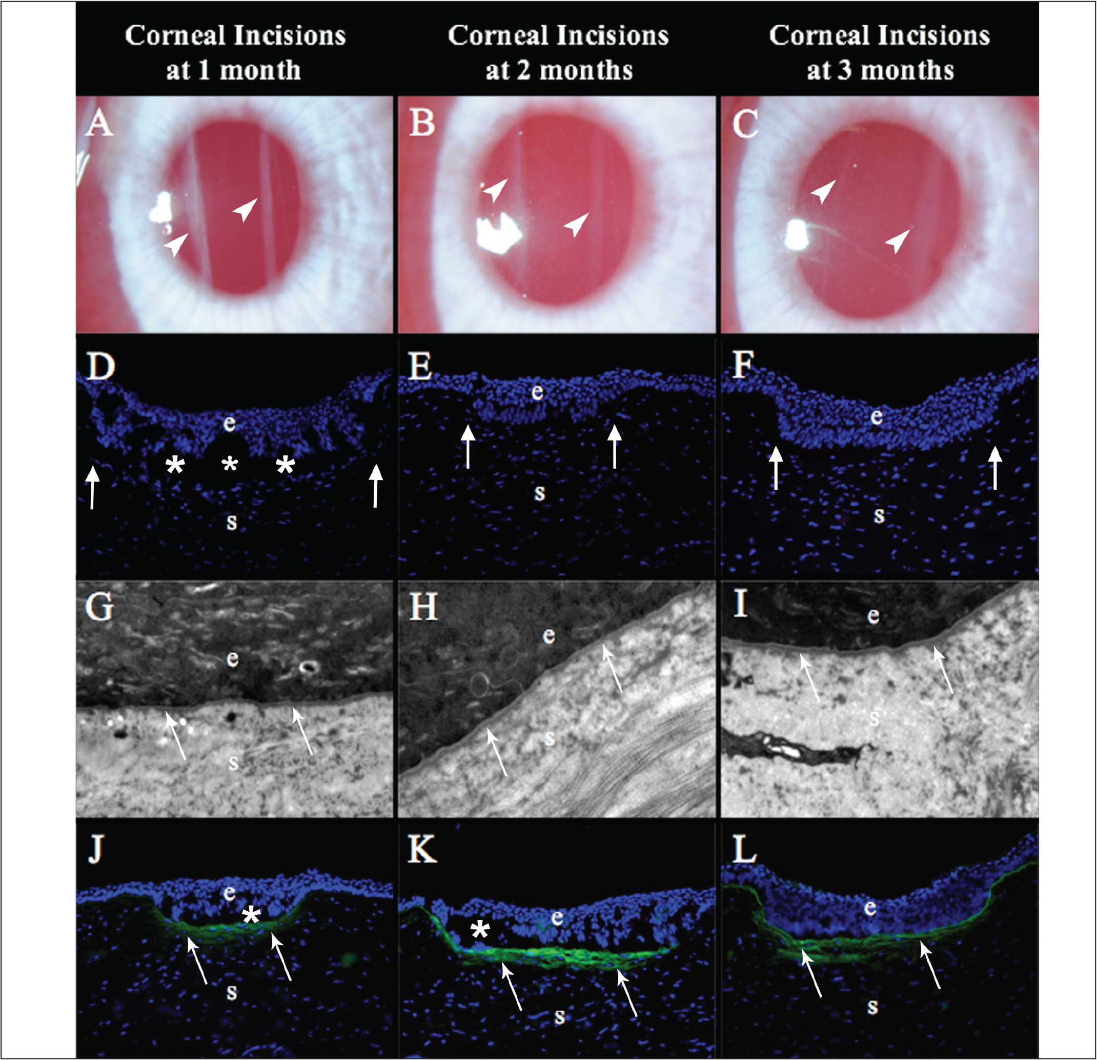 Rabbit corneas after nonperforating linear incisions. (A) At 1 month after surgery, the two incisions (arrowheads) were visible as dense linear opacities in all nine corneas that reached this time point (original magnification ×25). (B) At 2 months after surgery, the incisions (arrowheads) were less opaque in all six corneas that reached this time point (original magnification ×25). (C) At 3 months after surgery, the incisions (arrowheads) were faint compared to the 2-month time point in all three corneas that reached this time point (original magnification ×25). At (D) 1, (E) 2, or (F) 3 months after surgery there were no alpha-smooth muscle actin (α-SMA)+ cells anywhere in the cornea, including around the epithelial plugs (arrows), in three corneas at each time point (original magnification ×200). At (G) 1, (H) 2, and (I) 3 months after surgery the EBM (arrows), including lamina lucida and lamina densa, were fully regenerated and surrounded the epithelial plugs in all three corneas at each time point (original magnification ×23,000). (J) At 1 month after surgery, both incisions in each of the three corneas studied had collagen type III (COL3) (arrows) deposited in the subepithelial stroma beneath the epithelial plugs (original magnification ×200). At (K) 2 and (L) 3 months after surgery, more COL3 deposition (arrows), compared to the 1-month time point, was noted in the subepithelial stroma surrounding the epithelial plugs in each of the three corneas at each time points. Blue is DAPI staining of cell nuclei. e = epithelium; s = stroma; * = artifact separation of the epithelium from the stroma that occurs during cutting of the section.