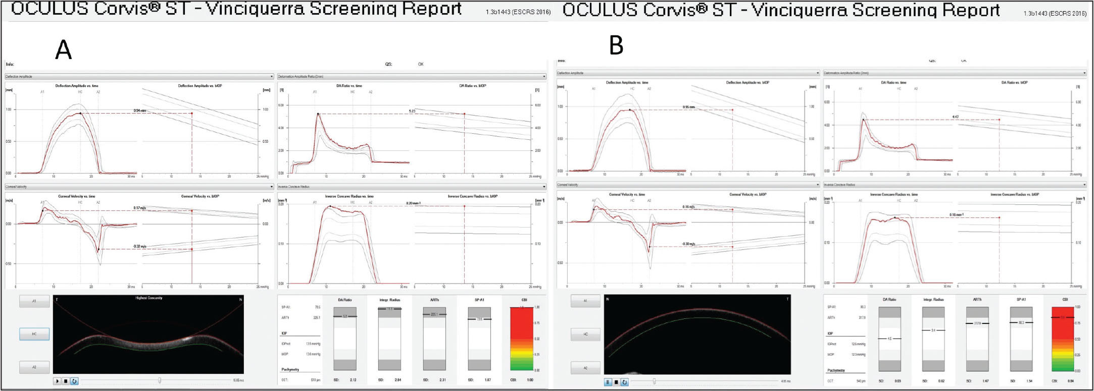 The follow-up biomechanical analysis with the Vinciguerra Screening Report in case 8 in 2014. The biomechanics of either the right (Corvis Biomechanical Index score of 1) or left (Corvis Biomechanical Index score of 0.84) eye became abnormal.