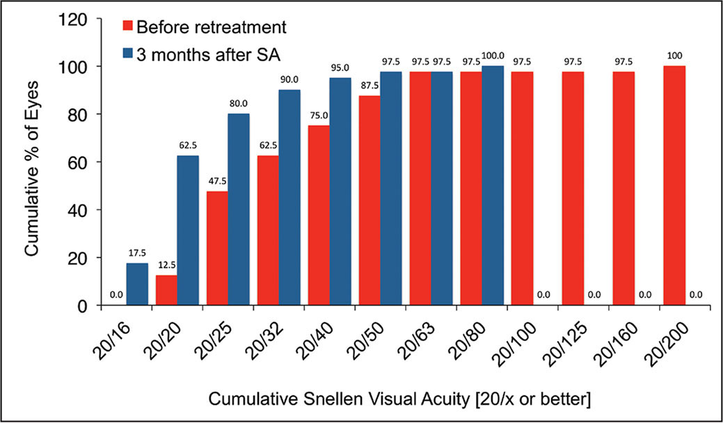 Distribution of uncorrected distance visual acuity (UDVA) before and after re-treatment. The number of eyes with UDVA of 0.10 logMAR or better increased from 47.5% to 80% and the proportion of eyes with UDVA of 0.00 logMAR or better increased from 12.5% to 62.5%. SA = surface ablation