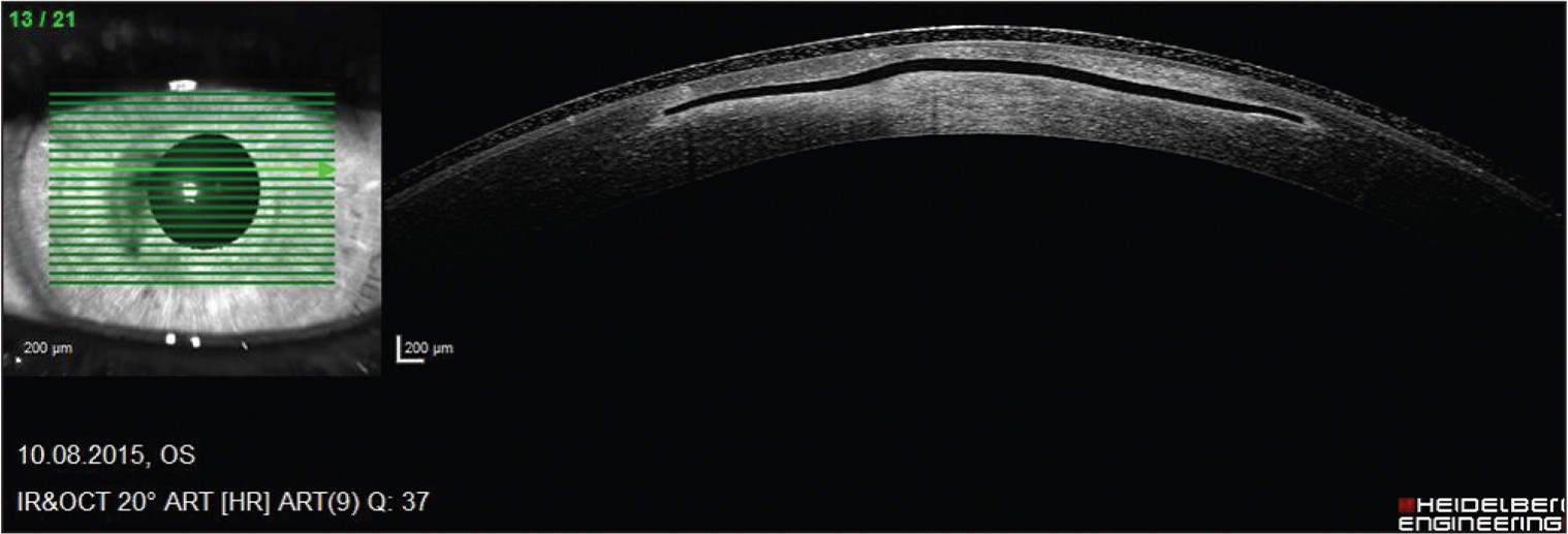 Anterior segment optical coherence tomography (Spectralis OCT; Heidelberg Engineering, Heidelberg, Germany) showing deformed inlay before explantation.