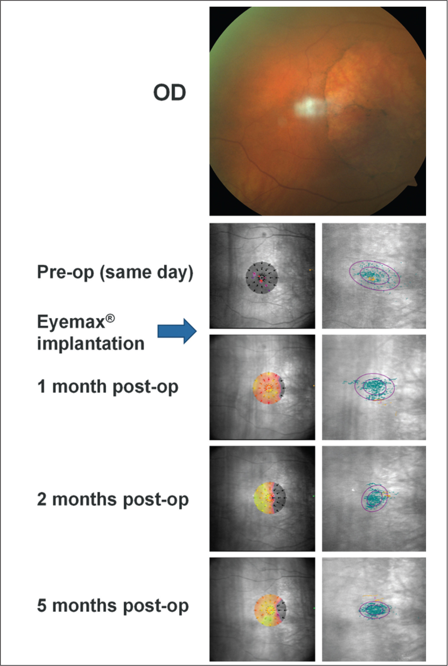 Preoperative color fundus photograph and microperimetric images obtained at baseline and 1, 2, and 3 months after implantation of the Eyemax mono intraocular lens (IOL) (LEH Pharma, London, United Kingdom) (eye 1). Color fundus photograph of the right eye in an 86-year-old woman (top panel) confirming a large area of geographic atrophy. Left panels show baseline and post-implantation interpolated sensitivity maps demonstrating the sensitivity at each point of the retina using information from nearby stimuli. Right panels show fixation points (blue dots; orange fixation dots represent points used in the first 10 seconds of the test) with bivariate contour ellipse area analysis; the smaller ellipse contains 63% of all fixation points and the larger ellipse contains 95% of all fixation points. Threshold sensitivity at baseline is observed to be zero with no stimuli seen (black dots) and fixation points are spread over a wide area that straddles the temporal border of geographic atrophy. Threshold sensitivities were observed to increase progressively over a 5-month period postoperatively (average threshold sensitivity increased from 0 dB at baseline to 16.6 dB at 5 months postoperatively); these changes are associated with a progressively more tightly focused cluster of fixation points centered outside of the area of geographic atrophy (mean percentage of fixation points within a 4° circle increased from 64% at baseline to 94% at 5 months). The preferred retinal locus is located temporal to the area of geographic atrophy in the patient's right eye and nasal to the area of geographic atrophy in the left eye (see Figure FB); this configuration is generally adopted to facilitate reading.