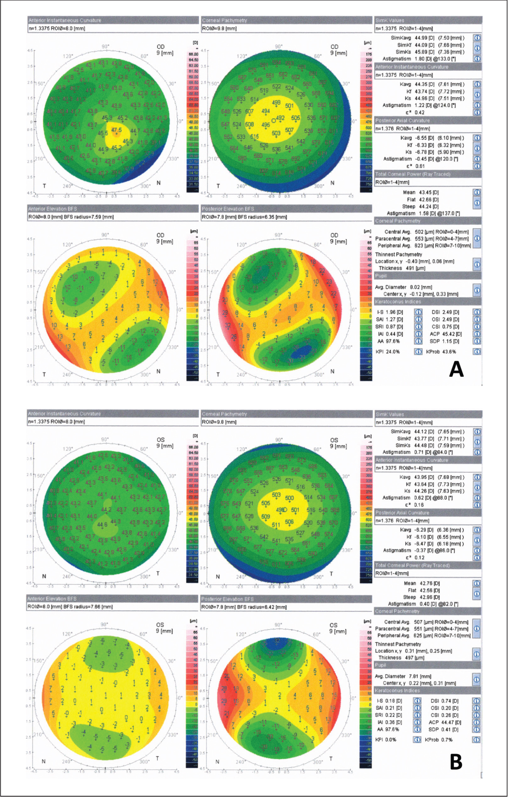 Preoperative Scheimpflug-based corneal topography of the (A) right and (B) left eyes showing inferior steepening with corresponding thinning in the right eye. Anterior curvature map showed a maximum keratometric reading of 47.5 diopters (D) and a thinnest corneal thickness of 491 μm coincident with posterior and relatively anterior elevation and inferior superior asymmetry of 1.96 D. In the left eye, anterior and posterior surface kerato-metric readings were 43.64 and 44.26 D and −6.10 and −6.47 D, respectively, with −0.62 D and 88° of astigmatism. Anterior curvature map showed a maximum keratometric reading of 44.60 D. The thinnest pachymetric reading in the left eye was 497 μm with an inferior-superior index of 0.18 D.