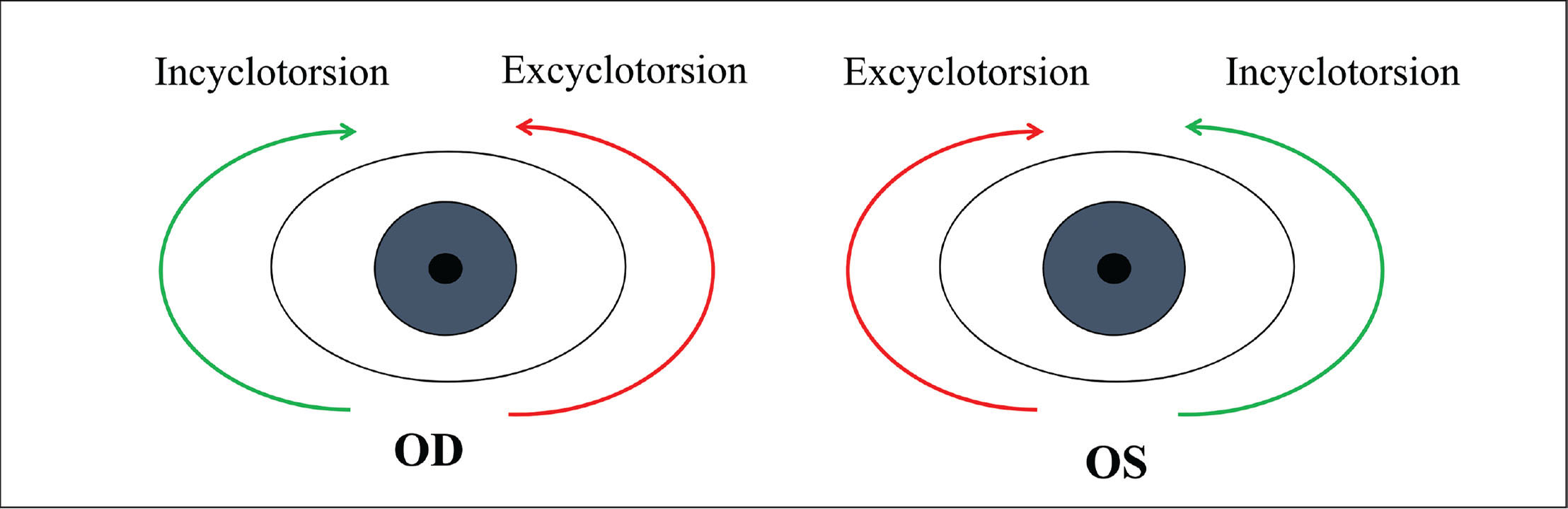 Directions of cyclotorsion in right and left eyes. The figure schematically illustrates directions of excyclotorsion and incyclotorsion in right (OD) and left (OS) eye. In right eyes, clockwise cyclotorsion indicates incyclotorsion and counterclockwise cyclotorsion indicates excyclotorsion. Conversely, clockwise and counterclockwise cyclotorsions in the left eye indicate excyclotorsion and incyclotorsion, respectively.