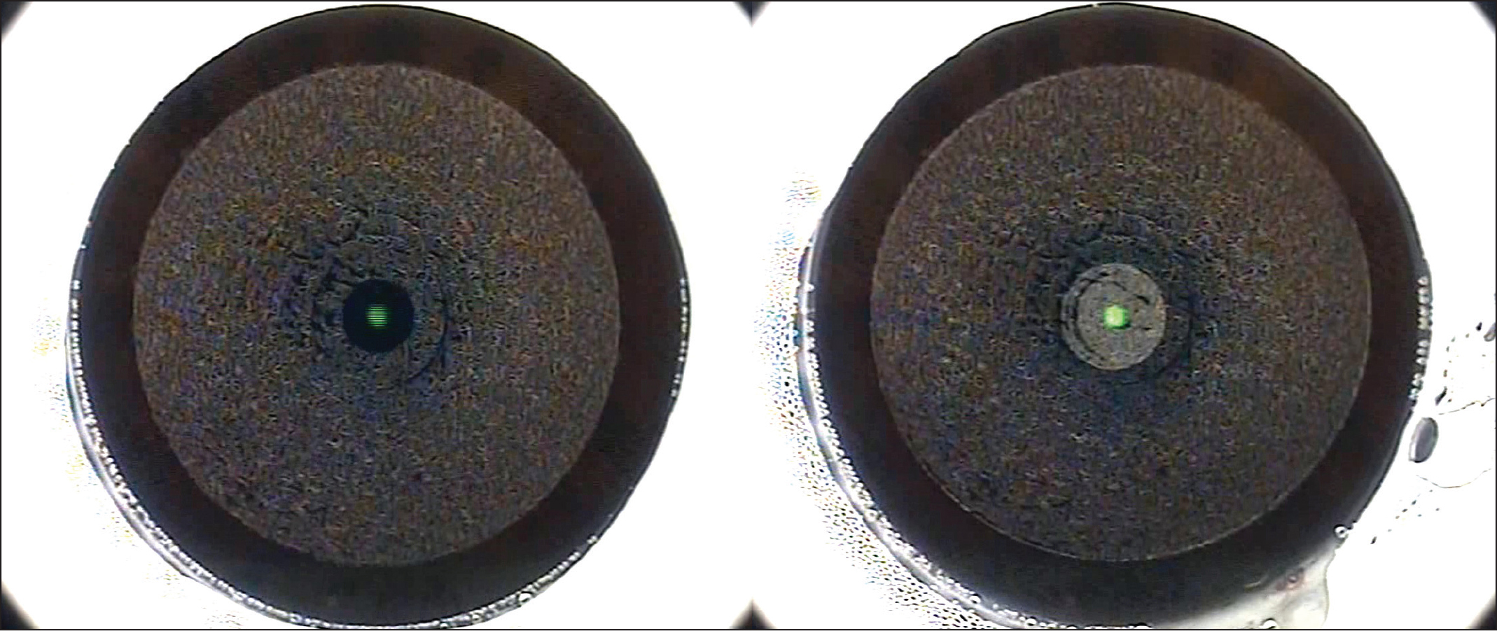 Pair of images showing a crescent discontinuity (left image) created in the lenticule interface centrally due to a large eye movement caused by an anxious patient squeezing the eye. The surgeon attempted to continue the femtosecond laser cutting, but another eye movement as the cap interface was started created a second discontinuity (right image), at which point the small incision lenticule extraction procedure was aborted and converted to laser in situ keratomileusis (LASIK). Reprinted with permission from Reinstein DZ, Archer TJ, Carp GI. The Surgeon's Guide to SMILE: Small Incision Lenticule Extraction. Thorofare, NJ: SLACK Incorporated; 2018.