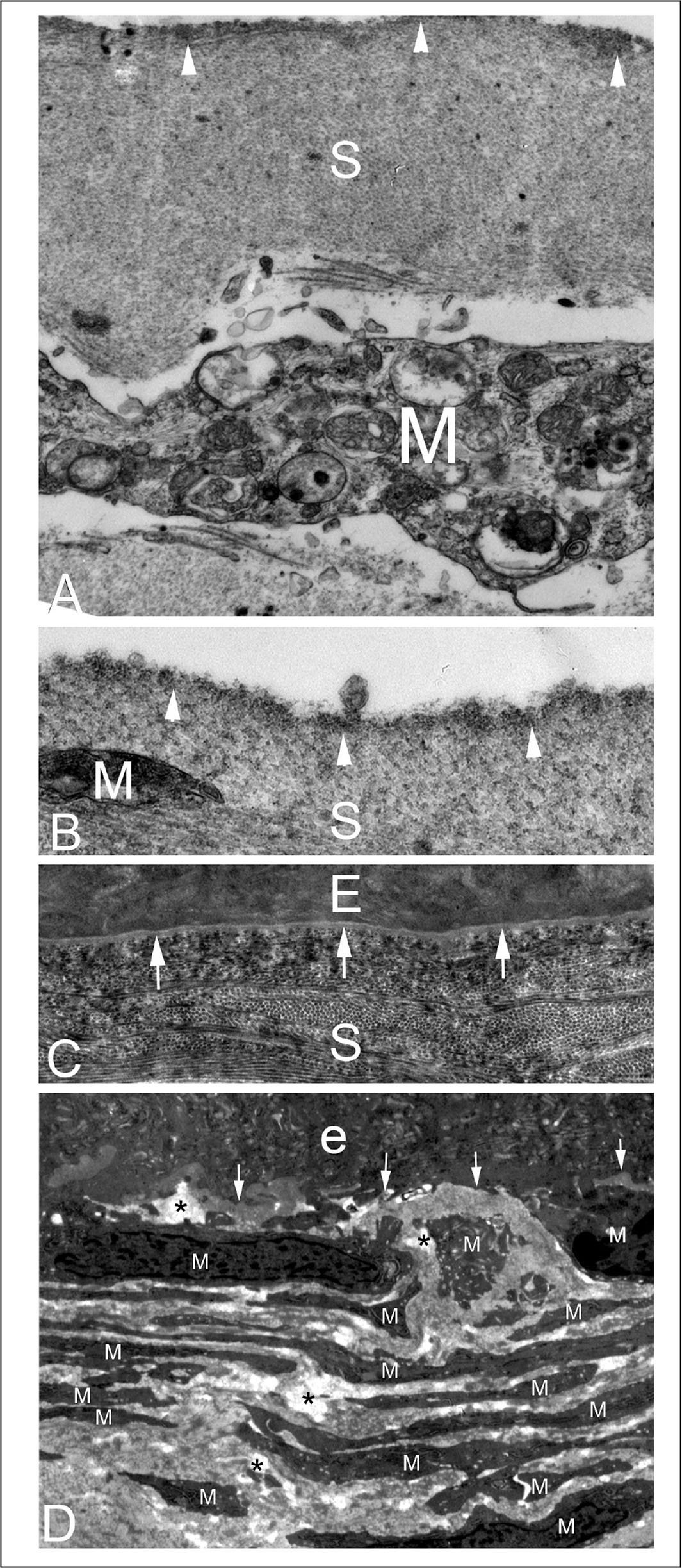 Transmission electron microscopy of rabbit corneas that developed persistent epithelial defects (PED) after −4.50 diopter (D) photorefractive keratectomy (PRK). The cornea in rabbit 1 that had not fully healed by 3 weeks after PRK is imaged by transmission electron microscopy in panels A–C. (A) A high magnification image of the stromal surface within the PED showing an irregular stromal surface (S) with dense material (arrowheads) at and beneath the surface. A large myofibroblast (M) is noted beneath the surface (original magnification ×21,000). (B) A higher magnification image of the stromal surface (S) within the PED again shows the layer of increased density at the stromal surface (arrowheads). A small portion of the end of a myofibroblast (M) is present (original magnification ×42,000). (C) The corneal surface of the same rabbit 1 cornea in the periphery of the excimer laser–ablated PRK zone 2 mm outside of the PED. Note the fully regenerated epithelial basement membrane with lamina lucida and lamina densa (arrows) at 3 weeks after PRK. Also note that the distribution of the collagen fibrils in this area of the stroma (S) is much more compact and distinct than within the PED in panel A (original magnification ×21,000). (D) Transmission electron microscopy of the cornea from rabbit 2 that had not healed by 3 weeks after −4.50 D PRK, which developed scarring, despite the epithelium subsequently closing by 4 weeks after surgery. Within the area of scar, where the PED had persisted for over 3 weeks, the anterior stroma (S) was populated by stacks of myofibroblasts (M) and the disordered extracellular matrix between them. No epithelial basement membrane was detectable at its normal location beneath the epithelium (e) (area indicated by the arrows), even with magnifications up to 40,000×. The asterisk indicates artifactual breaks in tissue that occur during cutting of the section due to weakening of the stroma by disordered extracellular matrix laid down by myofibroblasts (original magnification ×15,000).