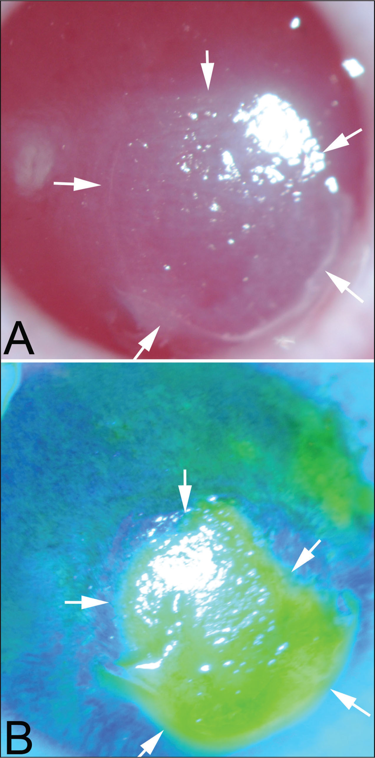 Slit-lamp photographs of a persistent epithelial defect (PED) in the cornea of rabbit 1 at 3 weeks after −4.50 diopter photorefractive keratectomy. (A) The epithelial defect is delineated by arrows and can be noted to have a thickened epithelial leading edge around the perimeter of the PED. The bare stroma within the PED is opaque and the opacity in the stroma extends a small distance peripheral to the leading edge of the PED. (B) Fluorescein staining of the same cornea shows the PED (original magnification ×10).