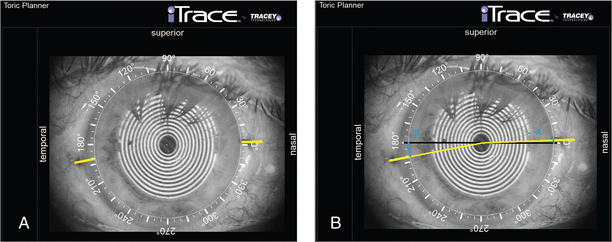 Measurement of reference analysis by iTrace (Tracey Technologies, Houston, TX) in a sample patient. The Zaldivar calipers on the toric planning software indicate the angle between the horizontal reference meridian and the line connecting the corneal center and the marking point on the (A) right and (B) left limbus.