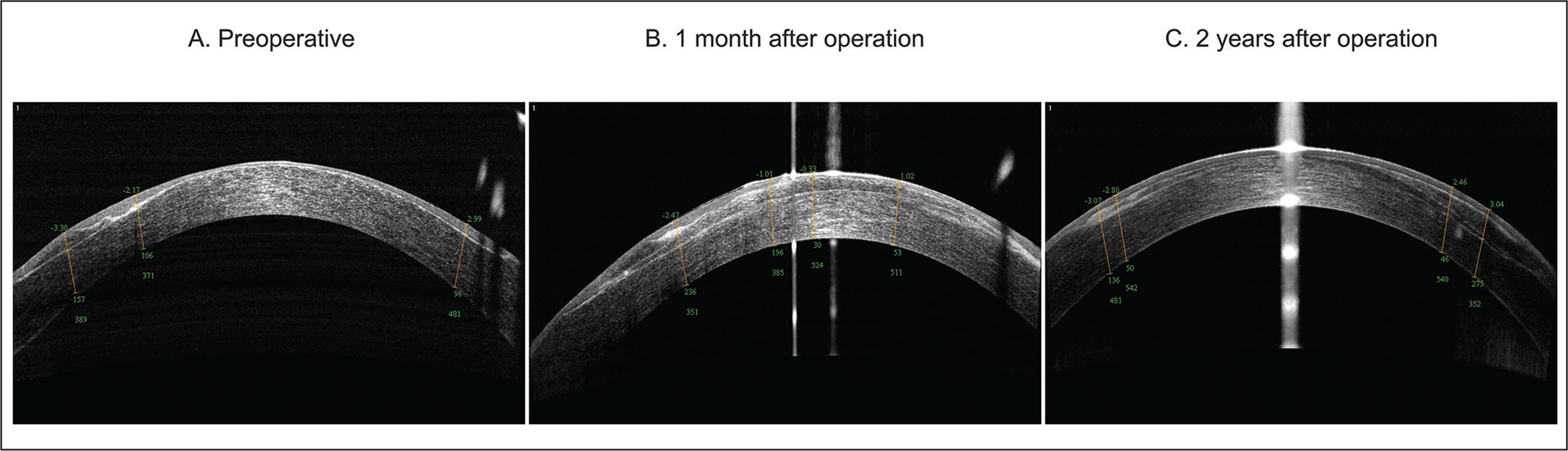 Anterior segment optical coherence tomography images (A) preoperatively and (B) 1 month and (C) 2 years after operation.