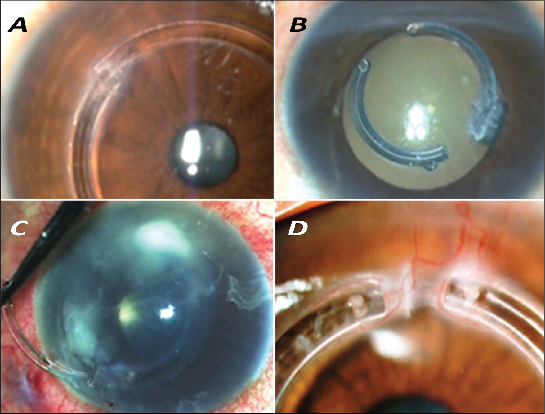 Complications of synthetic intrastromal corneal ring segments (ICRS). (A) Migration and over-riding of synthetic ICRS. (B) Stromal melt and necrosis over synthetic ICRS. (C) Infectious keratitis associated with synthetic ICRS. (D) Corneal neovascularization induced by synthetic ICRS.