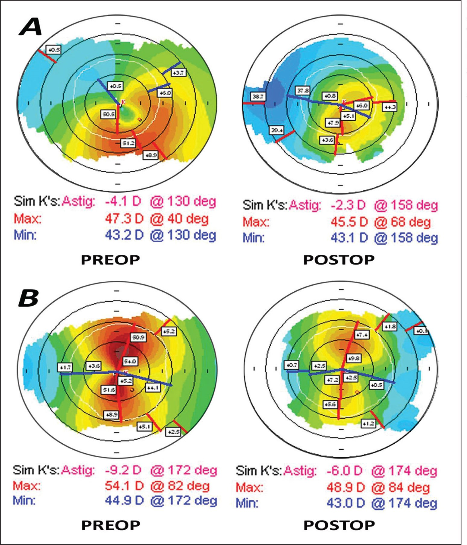 (A) Keratometric maps showing decrease in parameters from preoperatively to 2 weeks postoperatively. (B) Another patient showing improved parameters 1 month after implantation of corneal allogenic intrastromal ring segments (CAIRS). D = diopters; sim K = simulated keratometry; astig = astigmatism