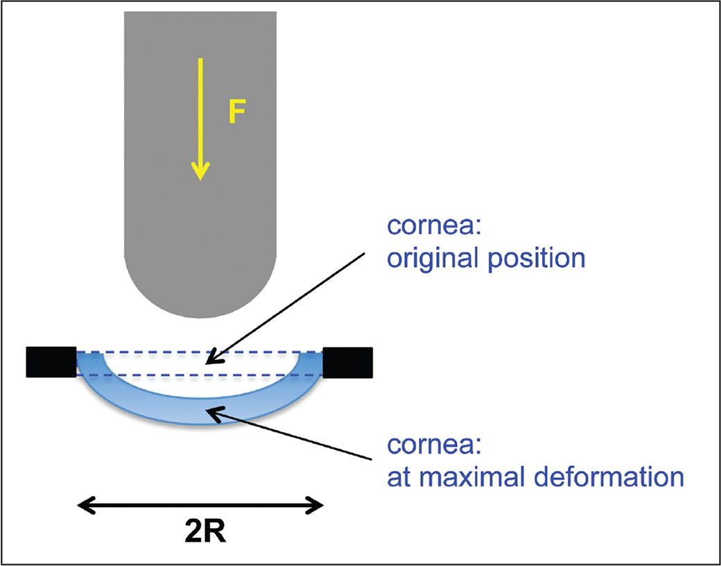 Schematic of the measurement set-up used for corneal biomechanical characterization.