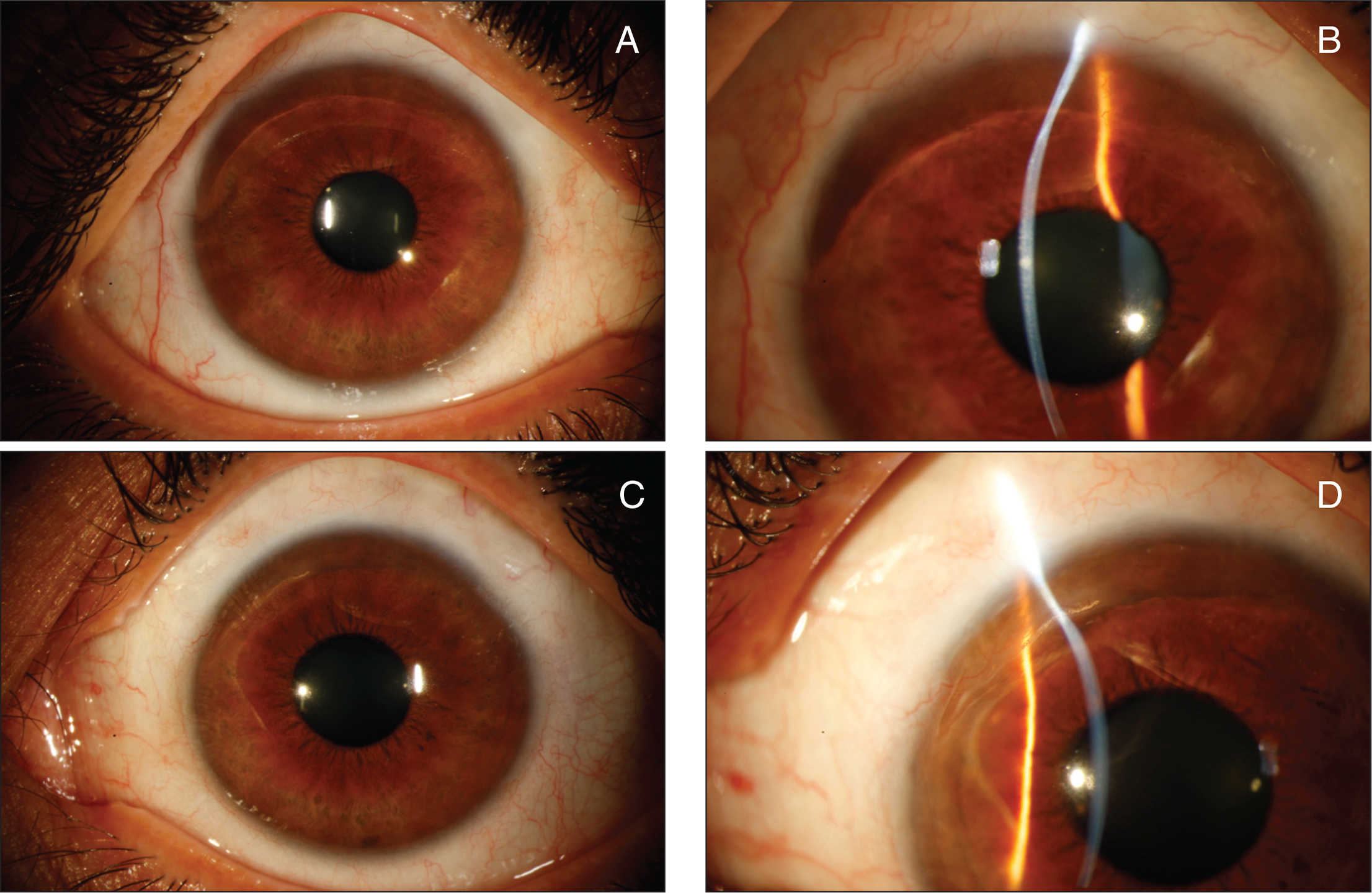 At the last follow-up visit, (A, B) 10 years after corneal cross-linking in the right eye and (C, D) 5 years after corneal cross-linking in the left eye, slit-lamp examination showed a stable thinning of the superior peripheral cornea in both eyes, with no signs of progression of the disease.