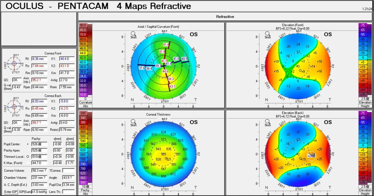 Corneal topography findings of patient 11 with subclinical keratoconus.