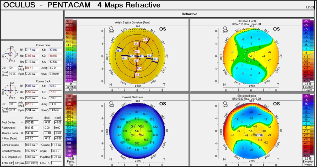 Corneal topography findings of patient 1 with subclinical keratoconus.