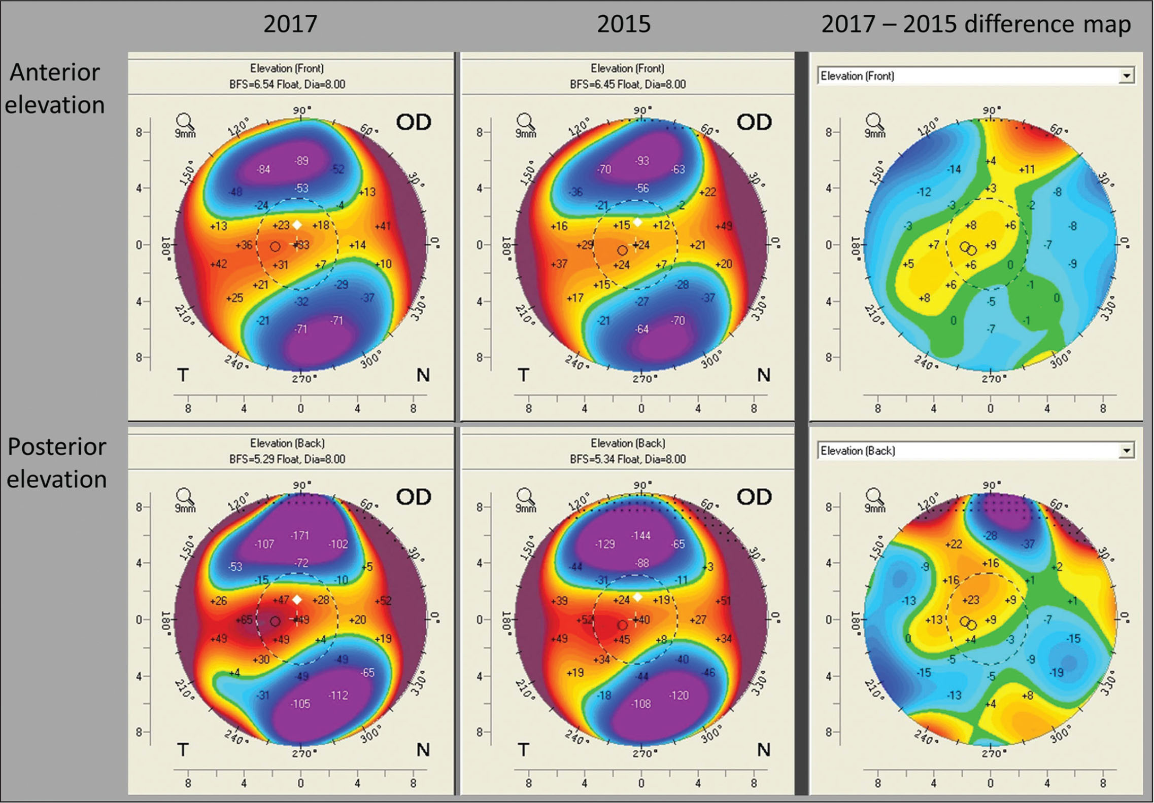 Pentacam corneal tomography (Oculus Optikgeräte, Wetzlar, Germany) from the 2017 visit, 2015 visit, and associated difference maps for anterior corneal evaluation (top row) and posterior corneal elevation (bottom row). There is progression noted on both surfaces.