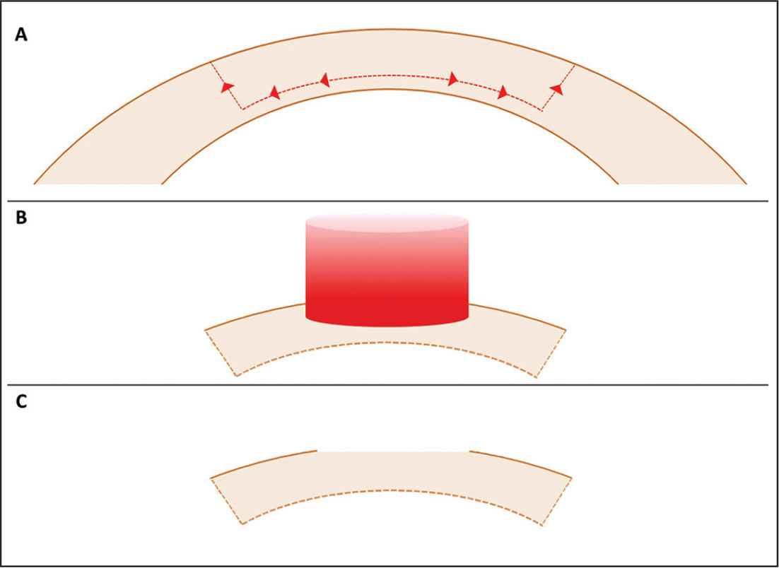 Diagrammatic representation of the steps involving donor tissue preparation. (A) The initial deep interface and side cut using the deep anterior lamellar keratoplasty software module. The button was then prepared for laser by removing the epithelium. (B) A 50-µm myopic ablation was performed that removed Bowman's layer and (C) provided a small amount of central flattening.