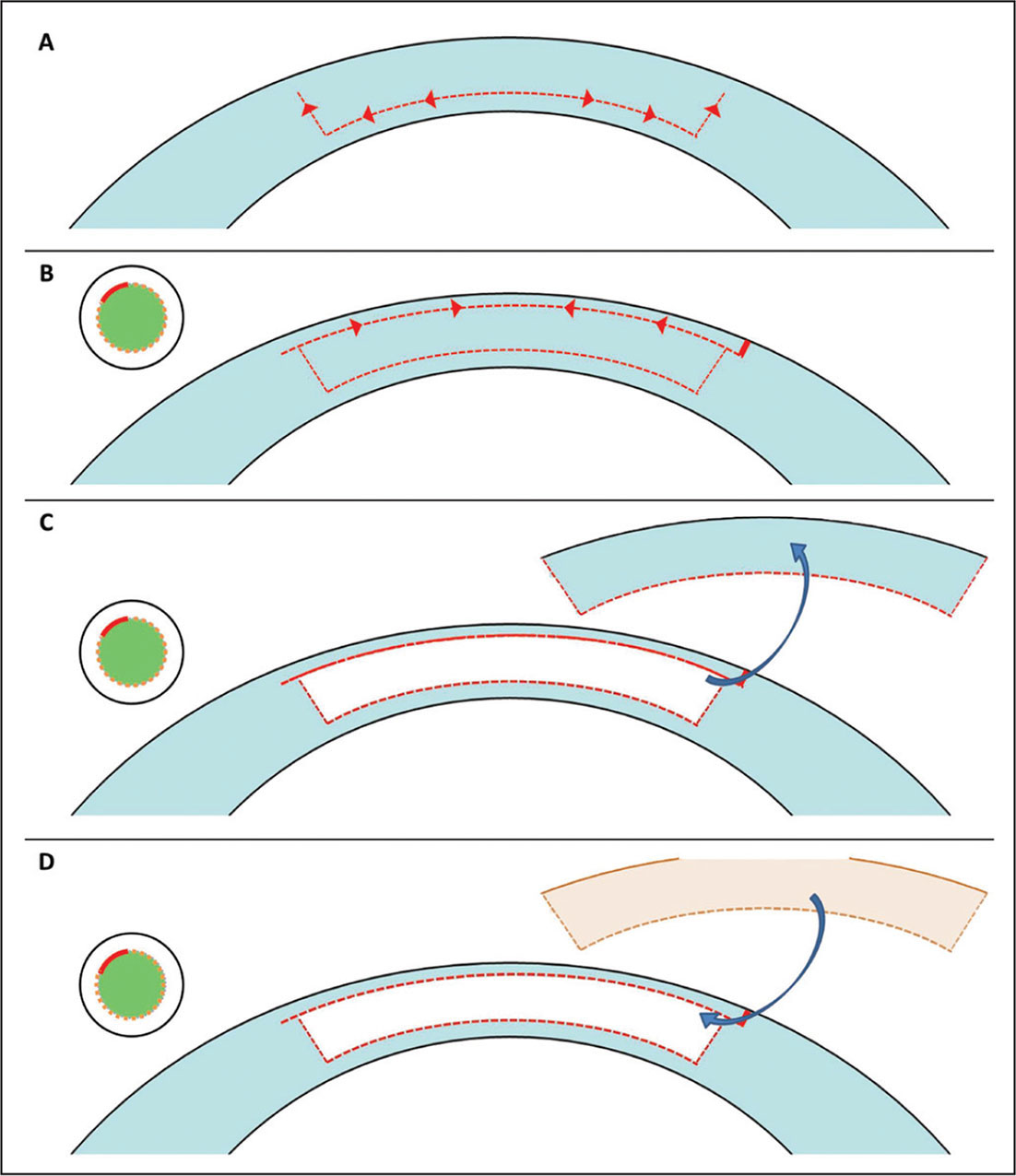 Diagrammatic representation of the steps involving recipient tissue preparation. (A) The initial deep interface and side cut using the deep anterior lamellar keratoplasty software license. A suction loss was generated when the side cut was 65% completed. (B) A laser in situ keratomileusis software license was used to create the anterior cut of the lenticule. The hinge was set to 330°. (C) The tissue removal was planned to leave 125 µm of anterior corneal stromal tissue and 140 µm of posterior corneal tissue. (D) The donor stromal lenticule was implanted into the recipient through the same small incision.