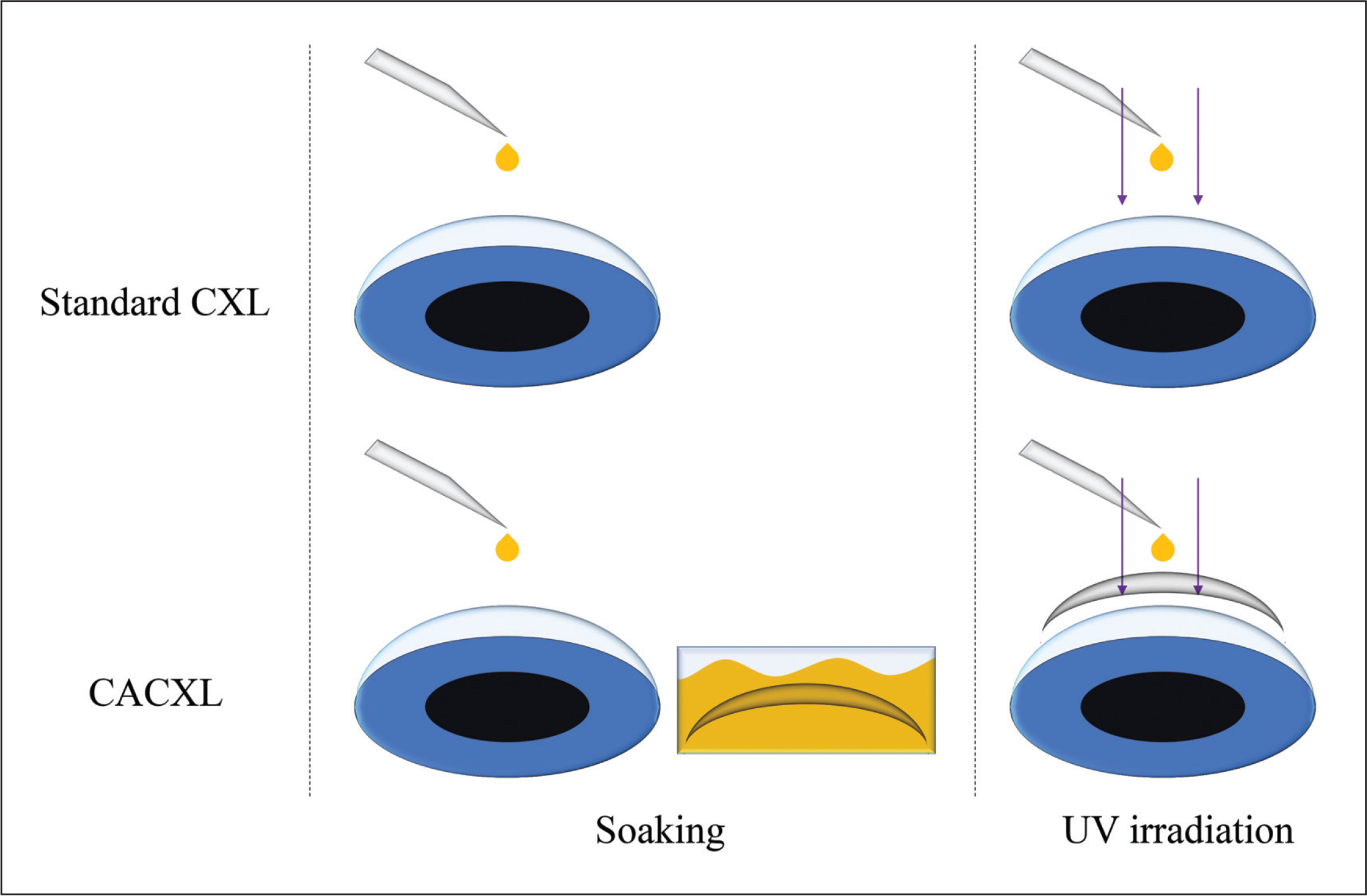 Corneal cross-linking (CXL) protocols for standard CXL and contact lens–assisted CXL (CACXL). Hydrophilic contact lenses were used to make riboflavin solution penetrate through contact lenses and diffuse into the stroma. Thus, there was no need to lift contact lenses during ultraviolet (UV) irradiation.
