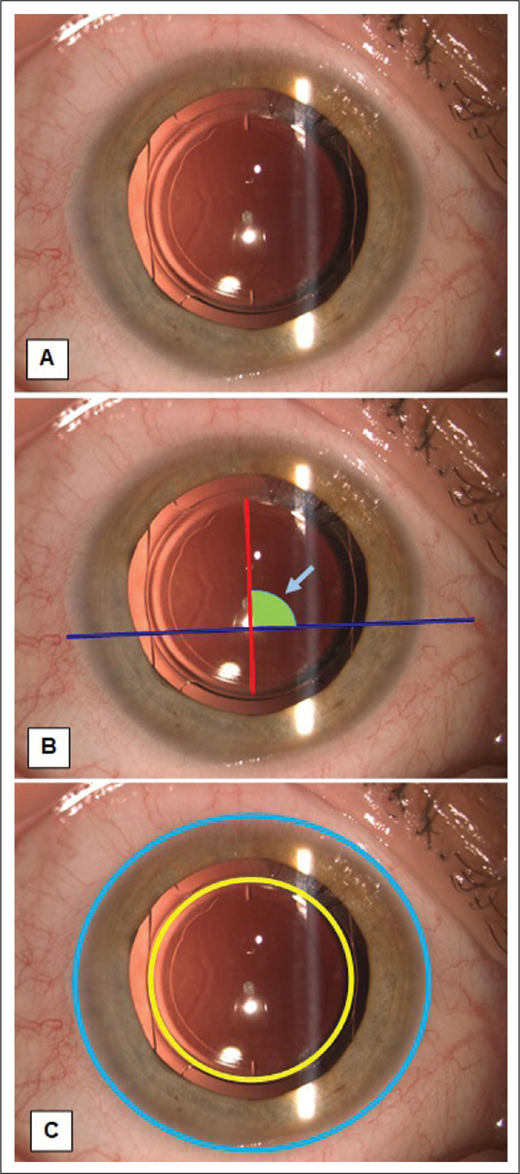 Image analysis for rotation and centration. (A) Original image of intraocular lens in situ, circumference of lens, and engraved markings clearly visible. (B) Line drawn joining engravings and separate line drawn joining two clearly visible conjunctival vessels. The angle between these lines is measured and compared at each visit to determine rotation. (C) Circle drawn to circumscribe the lens optic edge and one to circumscribe the limbus. Centers are compared for each visit to determine centration.