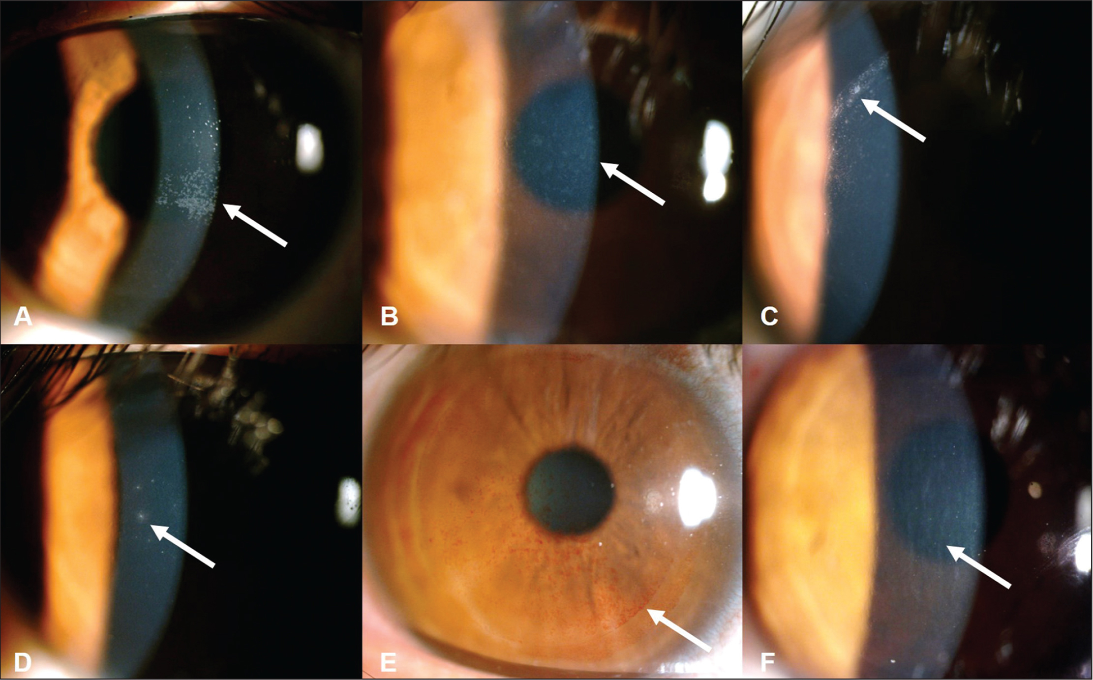 Slit-lamp photograph showing different postoperative corneal complications: (A) corneal epithelial erosion, (B) haze (grade 0.5), (C) interface debris, (D) infiltration with inflammatory cells, (E) interface blood, and (F) striae.