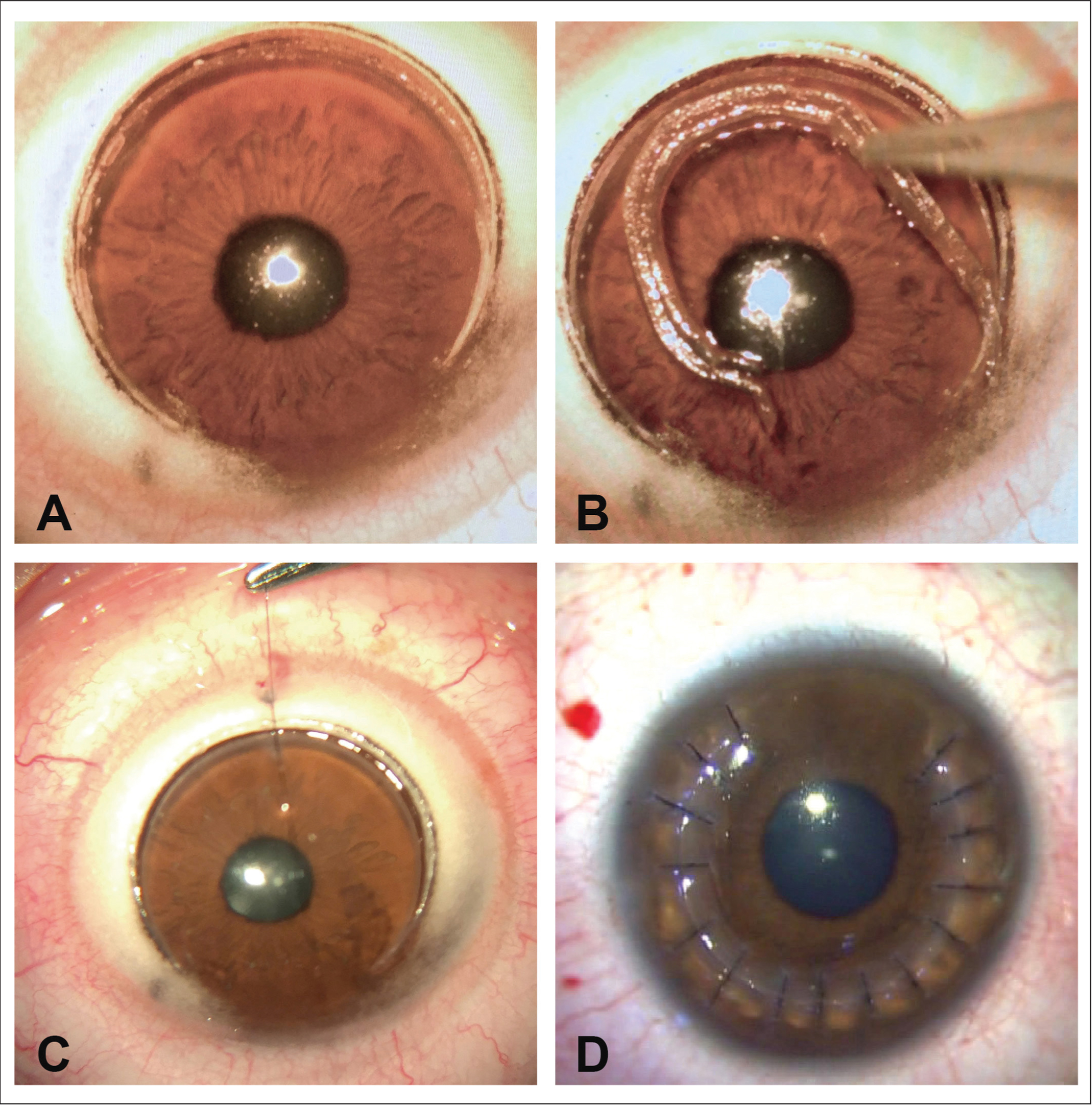 (A) A 270° keratectomy performed by femtosecond laser. (B) A piece of 270° arc length keratectomy taken off the cornea. (C) Edges are sutured by interrupted stitches. (D) Immediately after the procedure with all stitches placed.