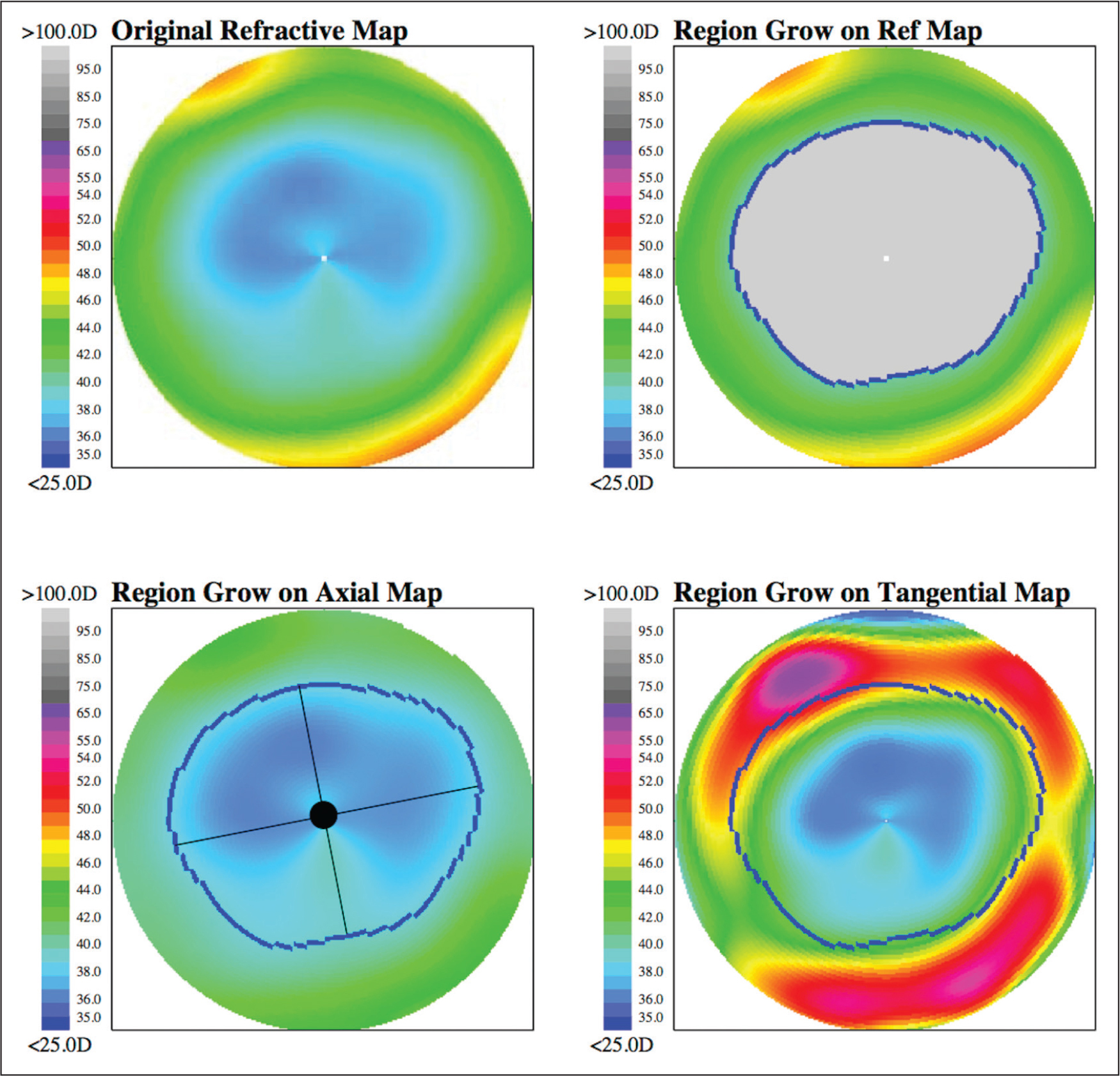 The region-growing functional optical zone (FOZ) result in a patient treated by small incision lenticule extraction (SMILE). Mean refractive power maps were created by applying Snell's law in the Pentacam HR (Oculus Optikgeräte GmbH, Wetzlar, Germany) export. The FOZ 3 months after SMILE is outlined in blue. The crossing of the minor and major axes on the lower left image marks the centroid of FOZ, used for decentration assessment. D = diopters
