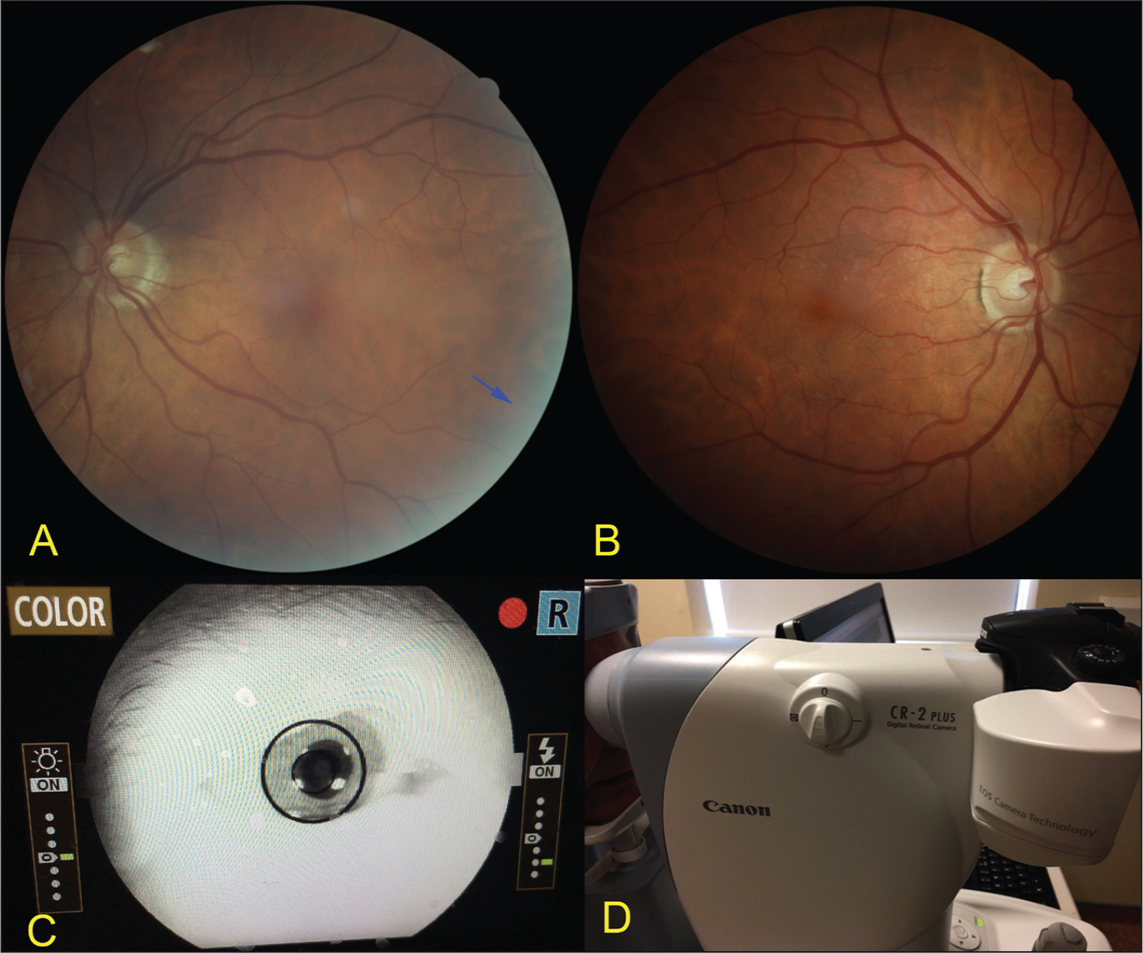 Fundus photographs captured with a non-mydriatic fundus camera. (A) Phakic eye showing paracentral light scatter from the natural lens (blue arrow). (B) Eye with IC-8 small-aperture intraocular lens (IOL) (Acufocus, Inc., Irvine, CA) showing a crisper paracentral image due to the small-aperture IOL blocking the stray light with no compromise of the posterior pole view. (C) Anterior segment view through the fundus camera showing the small-aperture IOL. (D) Side profile view of the non-mydriatic fundus camera.