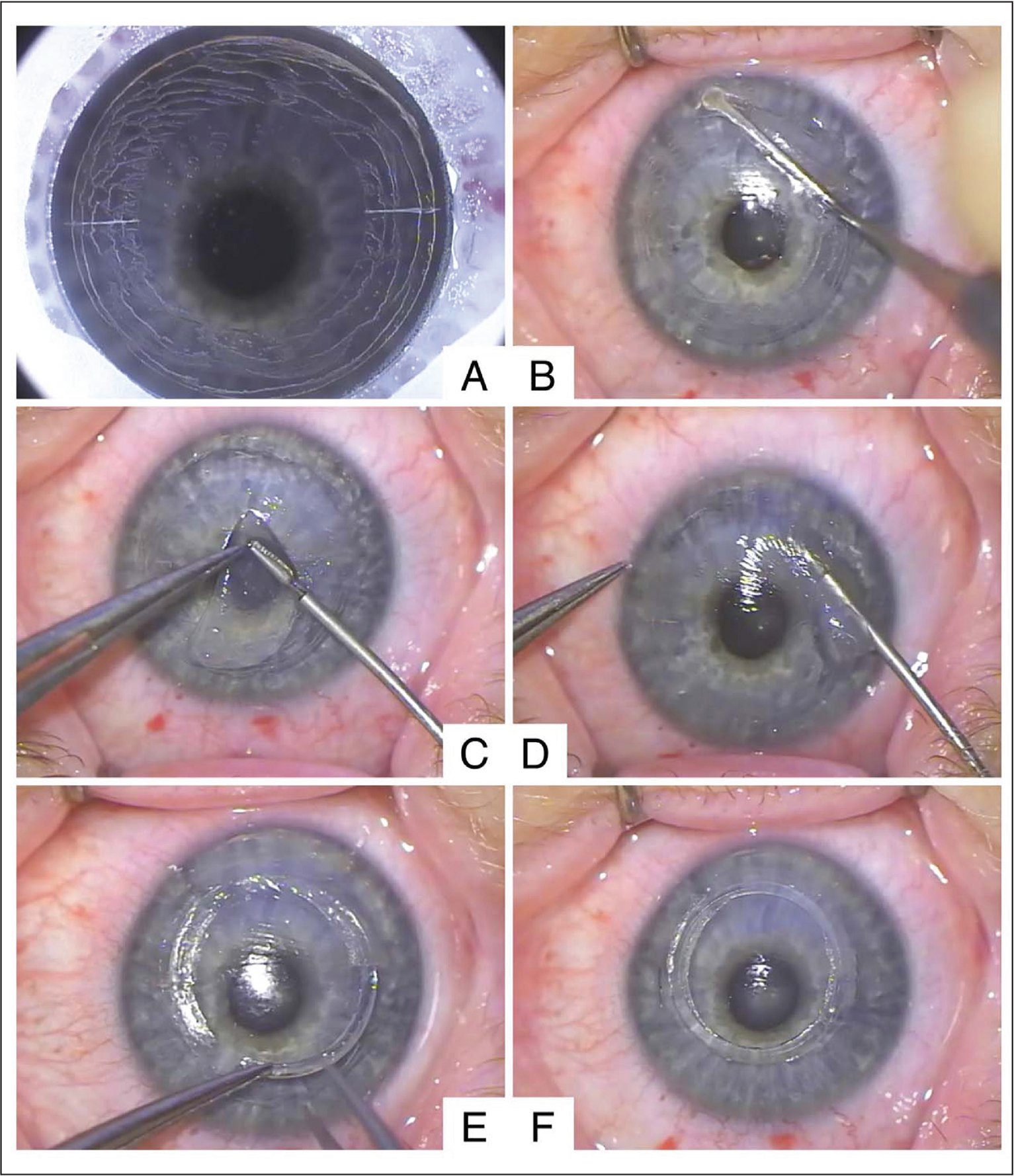 Intraoperative photographs. (A) Femtosecond laser tunnel creation. (B) Manual dissection through the thinned part of the cornea from the tunnel toward the limbus. (C) Refractive lenticule folded in half prior to insertion. (D) Lenticule implantation through the corneal incision into the stromal pocket. (E) Implantation of a 359° intracorneal ring segment after the lenticule placement. (F) Corneal incisions sutured with 10-0 nylon.