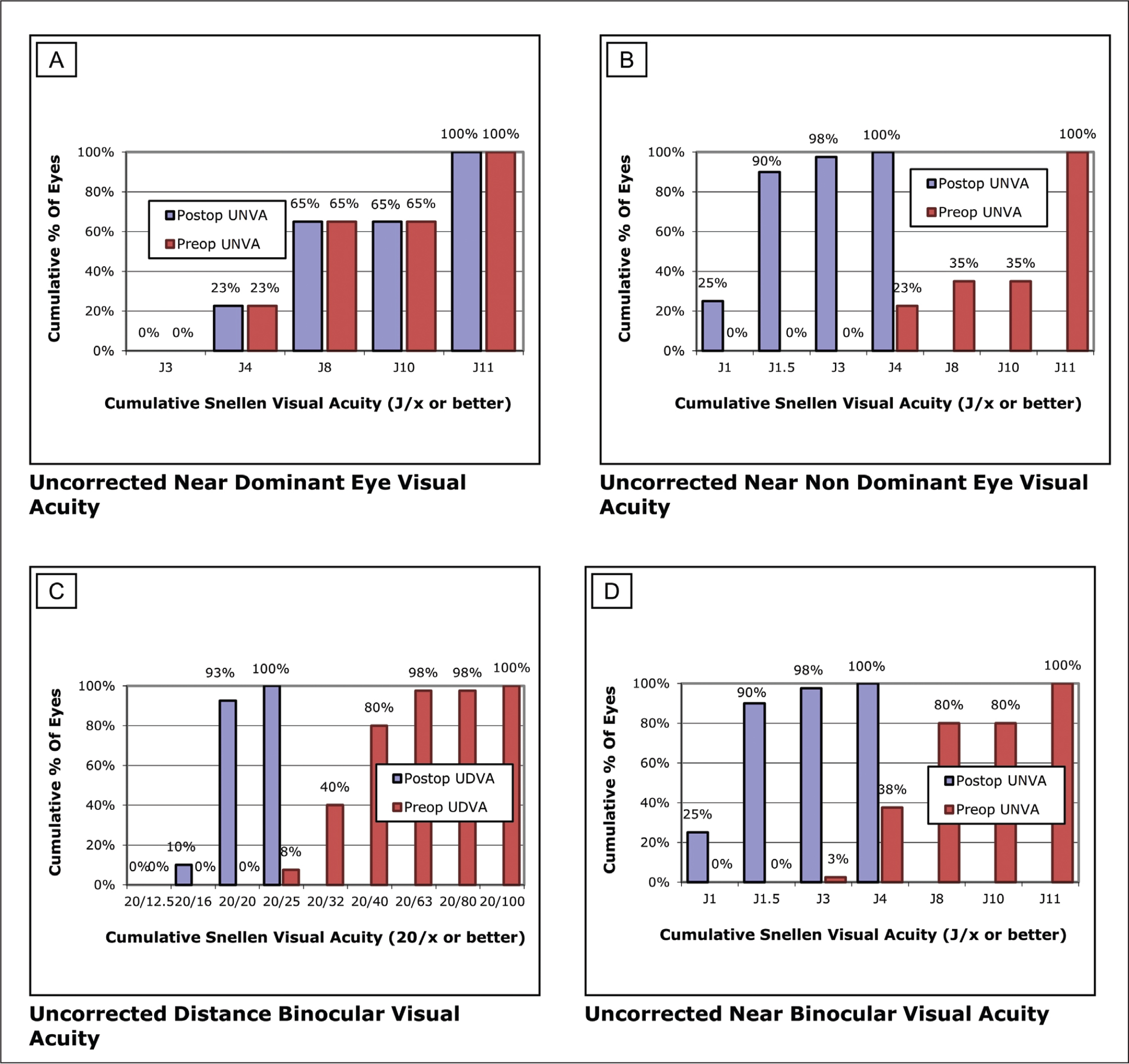 Distance and near complementary visual outcomes for reporting refractive surgery. (A) Near cumulative Jaeger visual acuity (Jx or better) for dominant eye. (B) Near cumulative Jaeger visual acuity (Jx or better) for the non-dominant eye. (C) Distance binocular cumulative visual acuity (20/x or better). (D) Near binocular cumulative visual acuity (Jx or better). D = diopters; UNVA = uncorrected near visual acuity; UDVA = uncorrected distance visual acuity