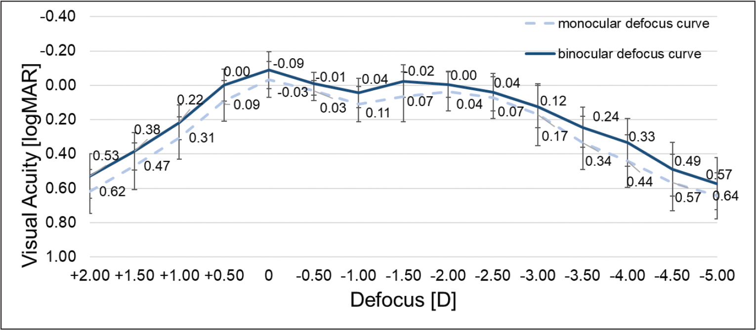 Monocular and binocular defocus curves of the toric AcrySof IQ PanOptix intraocular lens (Alcon Research LLC) at 3 months postoperatively (50 eyes). D = diopters
