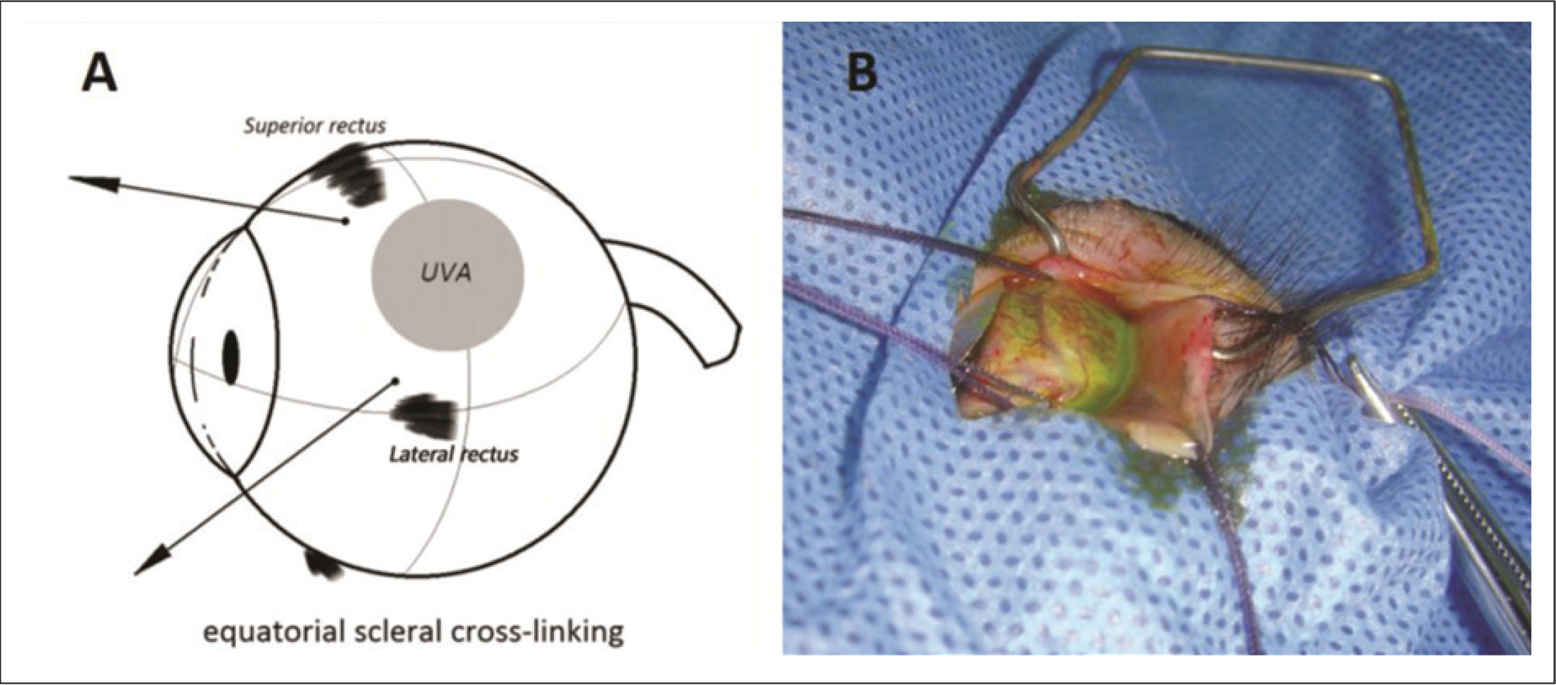 (A) Diagram of a rhesus monkey eyeball showing the scleral corneal cross-linking locations. (B) The eye was fixed and manipulated by sutures to protrude the eye and the cornea was covered by a piece of tinfoil to avoid irradiation. UVA = ultraviolet-A light