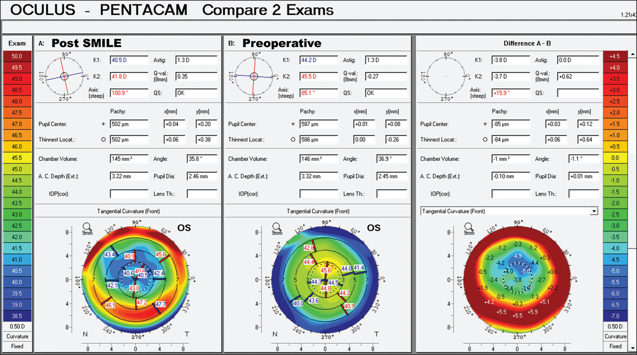 Scheimpflug difference map comparing anterior curvature before (middle image) and after (left image) small incision lenticule extraction (SMILE), with the difference in tangential curvature induced by lenticule extraction shown in the right image. This shows the maximal change in curvature occurred approximately 1.5 mm superior to the patient's optical zone. D = diopters