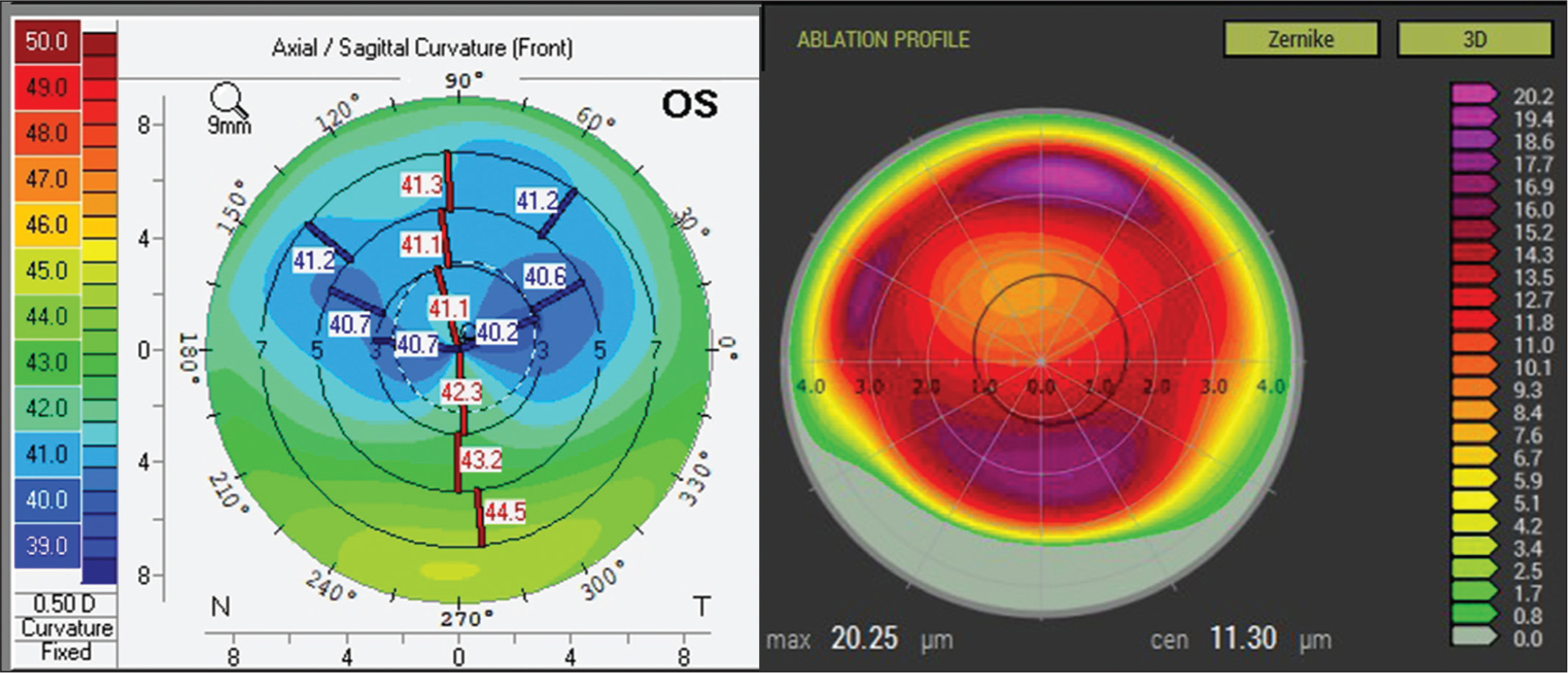 Composite image showing Scheimpflug anterior curvature map (left) and the planned topography-guided custom ablation treatment (T-CAT) ablation pattern showing only corneal aberration treatment (right). There is a distinct correlation between the region of maximal planned ablation related to aberrations (approximately 20 µm) in the T-CAT image that is located superiorly and inferiorly to the region of maximal flattening (maximal small incision lenticule extraction lenticule thickness) in Scheimpflug curvature image. D = diopters