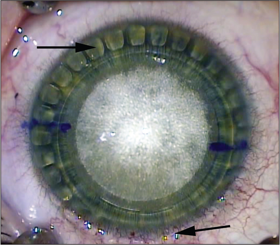 Intraoperative image obtained after lenticule creation but before lenticule dissection. The corneal suction pattern is still apparent at this juncture and is visible in the peripheral cornea inferiorly (black arrow) but extends well beyond the limbus onto the sclera superiorly (black arrow). Although the limbus is not an accurate determinant of the visual axis, this level of suction fixation decentration should alert the surgeon to confirm that the created lenticule was in fact centered, because this is the last opportunity to do so prior to lenticule removal.