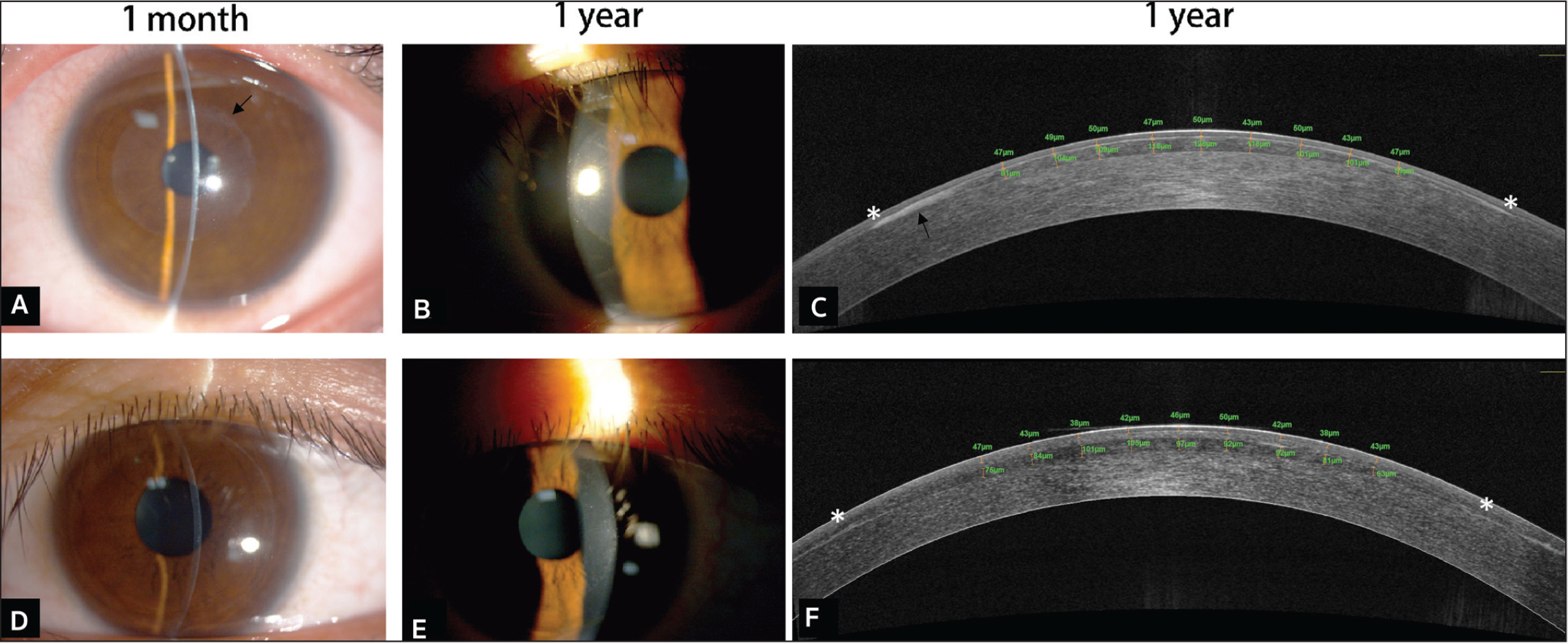 The top row shows the slit-lamp photography (A) 1 month and (B) 1 year after transepithelial phototherapeutic keratectomy (PTK-EP) and (C) an anterior segment optical coherence tomography (AS-OCT) B-scan 1 year after PTK-EP for eye 3. The black arrows show epithelial ingrowth at the margin of lenticule (A and C). The bottom row shows the slit-lamp photography (D) 1 month and (E) 1 year after PTK-EP and (F) an AS-OCT B-scan 1 year after PTK-EP for eye 5. The * highlights the edge of the lenticule in AS-OCT.