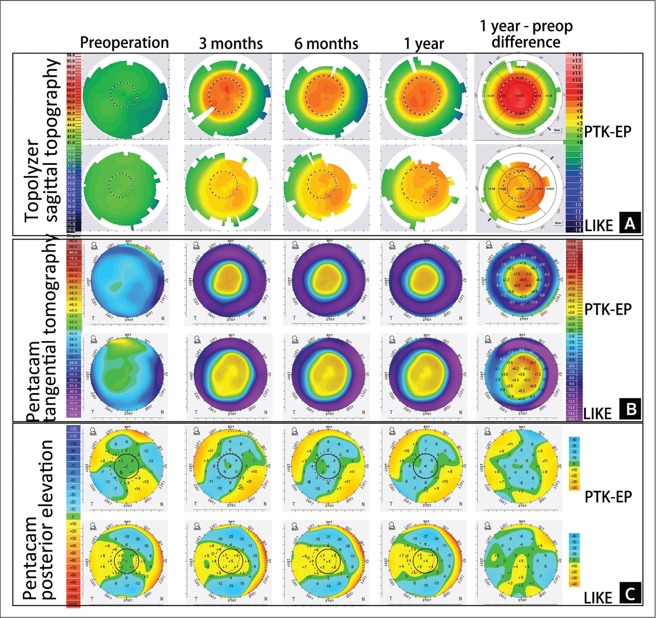 Corneal topography maps with transepithelial phototherapeutic keratectomy (PTK-EP) of eye 3 and femtosecond laser–assisted lenticule intrastromal keratoplasty (LIKE) of eye 5 over the follow-up period. (A) Anterior corneal surface topography shows axial curvature from the Alcon WaveLight Topolyzer (Alcon Laboratories, Inc) over time. (B) Anterior corneal surface tomography shows tangential curvature from the Pentacam (Oculus Optikgeräte) over time. (C) Posterior corneal surface elevation from the Pentacam over time. Figure BA shows that the irregularity of the anterior corneal surface gradually becomes regular within 1 year in both groups. Figure BB shows that there is no significant change in the morphology and diameter of the optical zone of the two procedures during the follow-up period. Figure BC shows that there is no significant change of elevation in the posterior corneal surface under the same best-fit sphere during the follow-up period. OD = right eye; OS = left eye