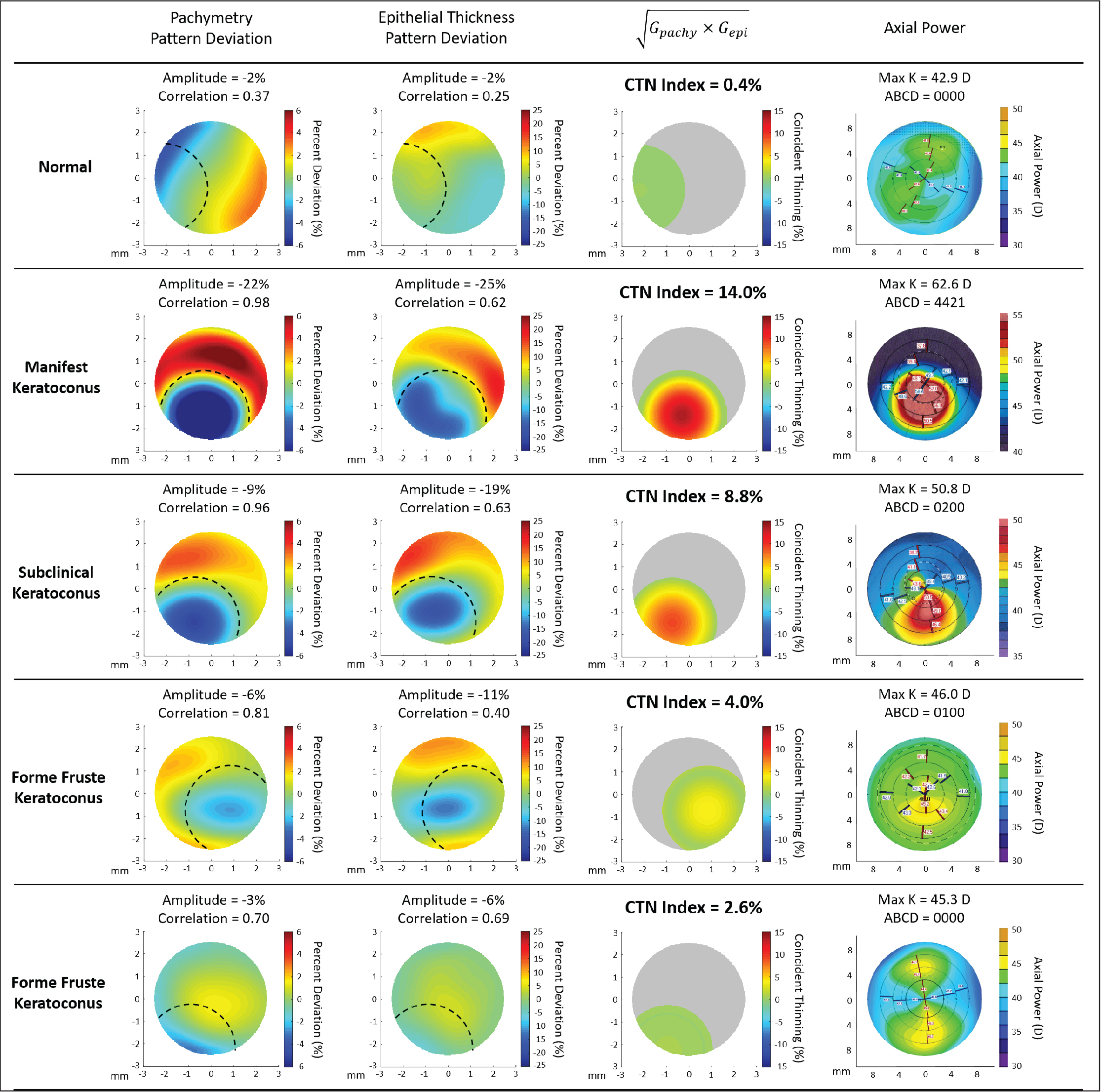 Pattern deviation, coincident thinning (CTN), and Pentacam (Oculus Optikgeräte GmbH) axial power maps for representative eyes from each group. Eyes in the keratoconus groups were generally found to have a higher amplitude and correlation from Gaussian fitting compared to normal eyes (dashed line = Gaussian fit region). Gpachy = pachymetry Gaussian fit; Gepi = epithelial thickness Gaussian fit; D = diopters; K = keratometry