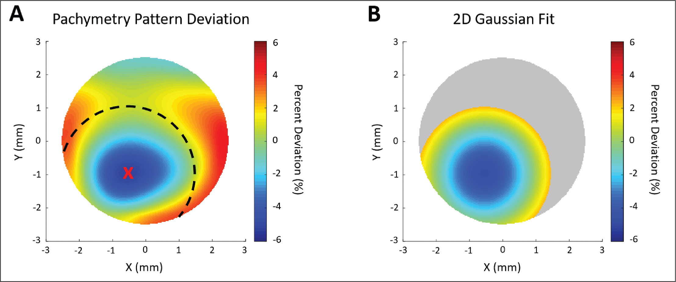 Gaussian fitting procedure for a representative pachymetry pattern deviation map from an eye with manifest keratoconus. (A) The location of maximum relative thinning within the search area was identified, and (B) a 4-mm diameter surrounding region was used for Gaussian fitting.