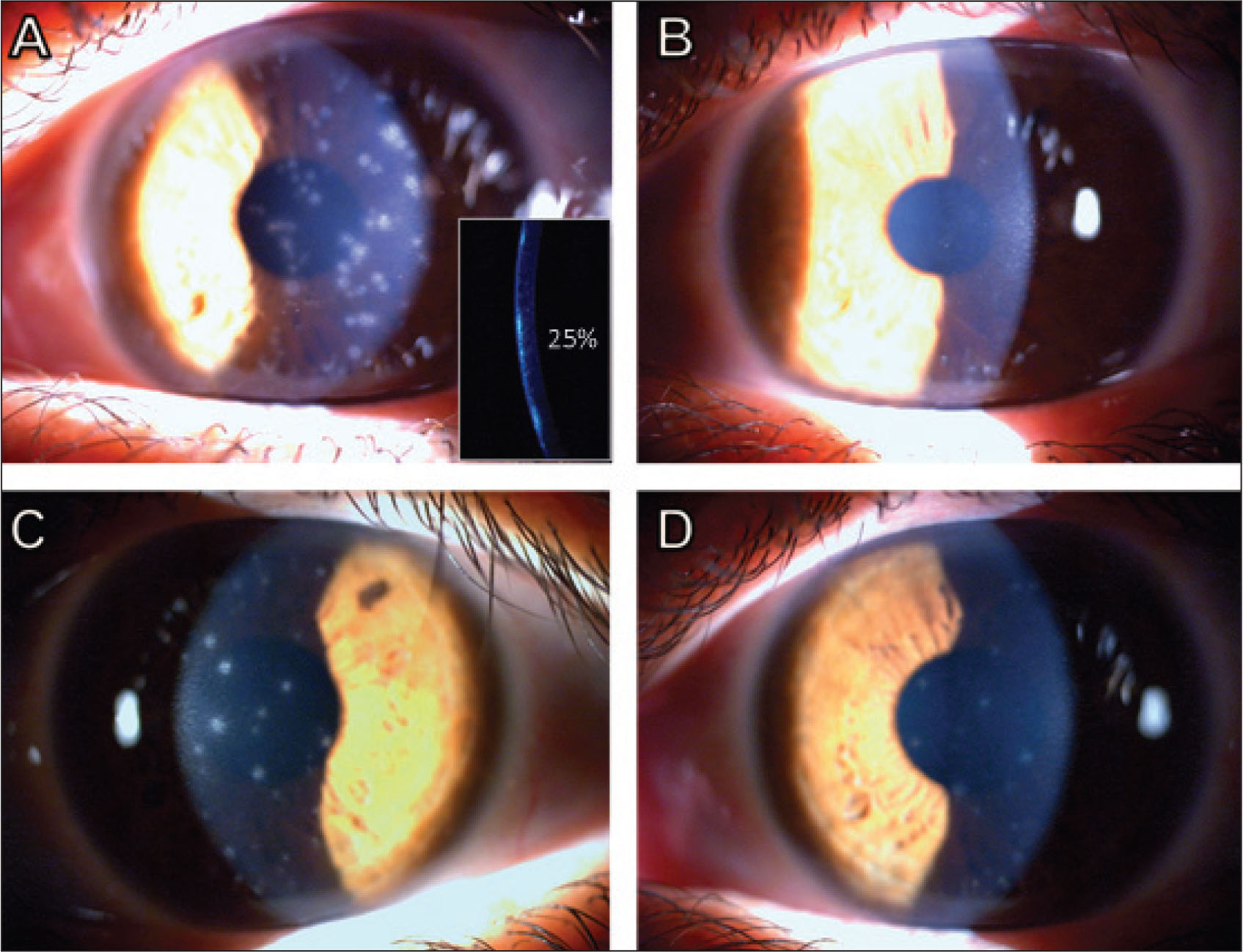 A 39-year-old patient with multiple adenoviral scars 1 year after acute epidemic keratoconjunctivitis. Preoperative corrected distance visual acuity (CDVA) was 20/40. (A) Nummular adenoviral scars in the anterior stroma affecting 25% of corneal thickness. (B) One month after surface ablation (80-µm ablation depth), uncorrected distance visual acuity (UDVA) was 20/20. (C) Two months after surface ablation. Recurrence of subepithelial infiltrates, CDVA decreased to 20/100. (D) Improvement of subepithelial infiltrates after 1 month using steroid drops, with UDVA back to 20/20.