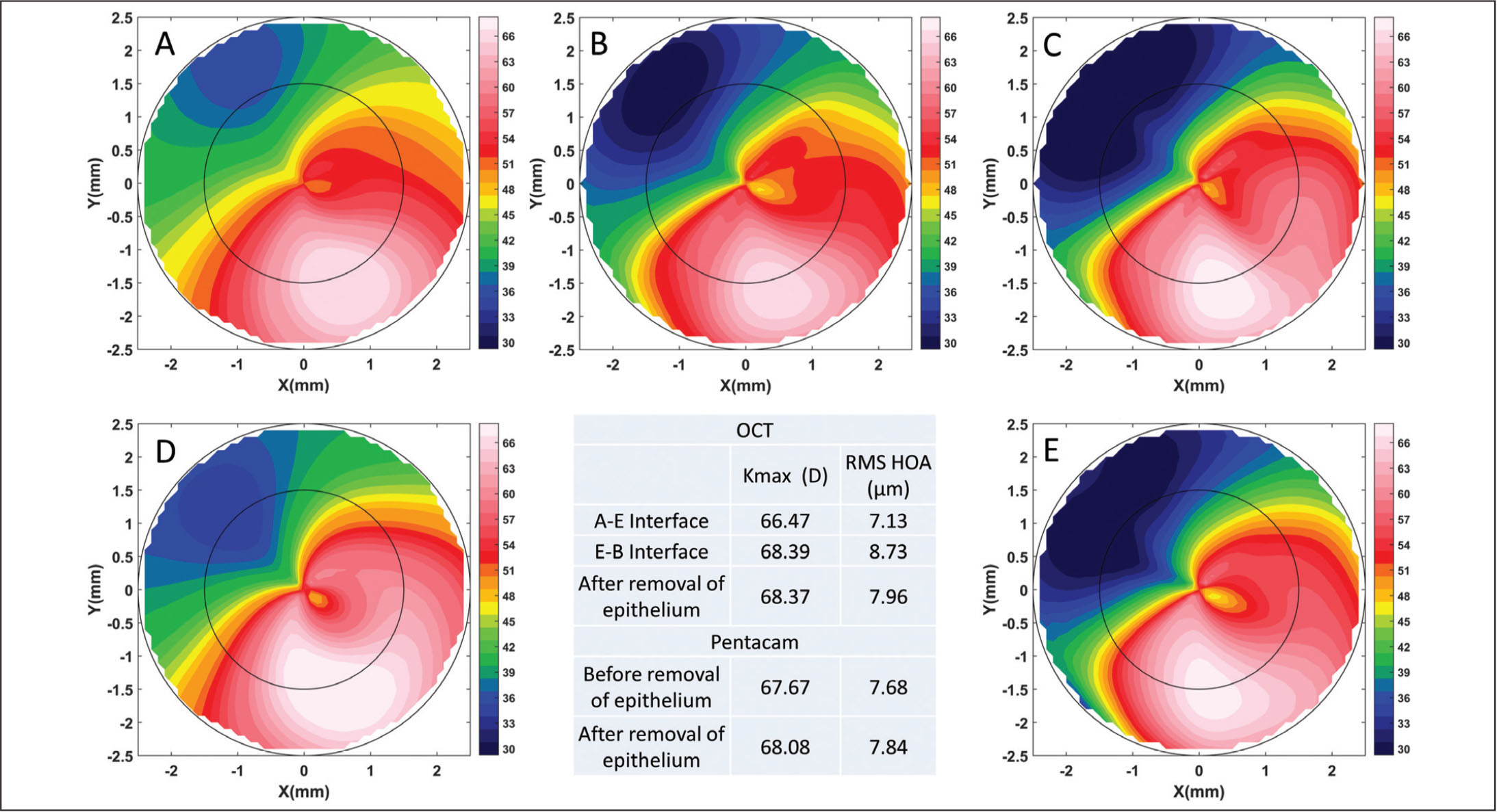 Sample optical coherence tomography (OCT) topography (axial curvature in diopters) of (A) air–epithelium interface (A–E); (B) epithelium–Bowman's layer interface (E-B); and (C) exposed Bowman's layer after removal of epithelium. For the same eye, sample Pentacam (Oculus Optikgeräte, Wetzlar, Germany) topography (D) before and (E) after removal of epithelium. The table lists the maximum curvature (Kmax) and root mean square of higher order aberrations (RMS HOA). D = diopters