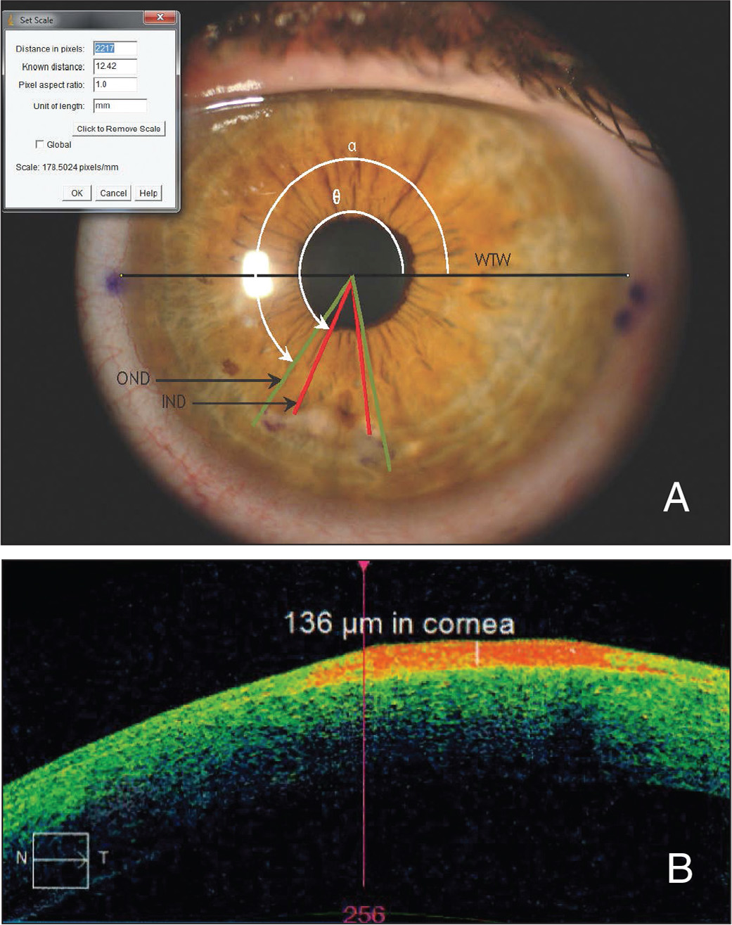 "(A) Slit-lamp photograph of the affected eye imported into ImageJ software. The horizontal black line corresponds to white-to-white (WTW) measurement, which has been derived from the Scheimpflug image and used in the ImageJ software to set the ""pixel aspect ratio."" The green and red lines correspond to the outer and inner diameters of the lesion, respectively, and their angles; the nasal angles alpha and theta represented above, were automatically calculated on the ImageJ software and referenced to the horizontal WTW measurement. (B) A section of the cube mode (4 × 4 mm) of Zeiss Cirrus optical coherence tomography (Carl Zeiss Meditec AG) of the affected cornea showing the Salzmann's nodular lesion. The maximum depth of the protruding lesion to the level of the unaffected Bowman's layer was measured. OND = outer nasal diameter; IND = inner nasal diameter; α = angle of OND from horizontal; Ø = angle of IND from horizontal"