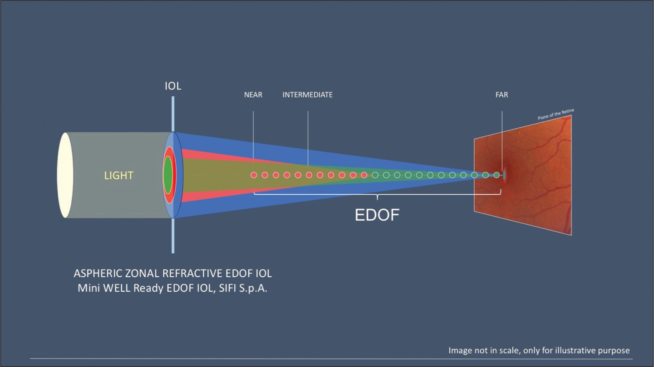 Schematic illustration of the Mini Well Ready extended depth of focus (EDOF) intraocular lens (IOL). Image provided courtesy of Dr. Zuppardo.